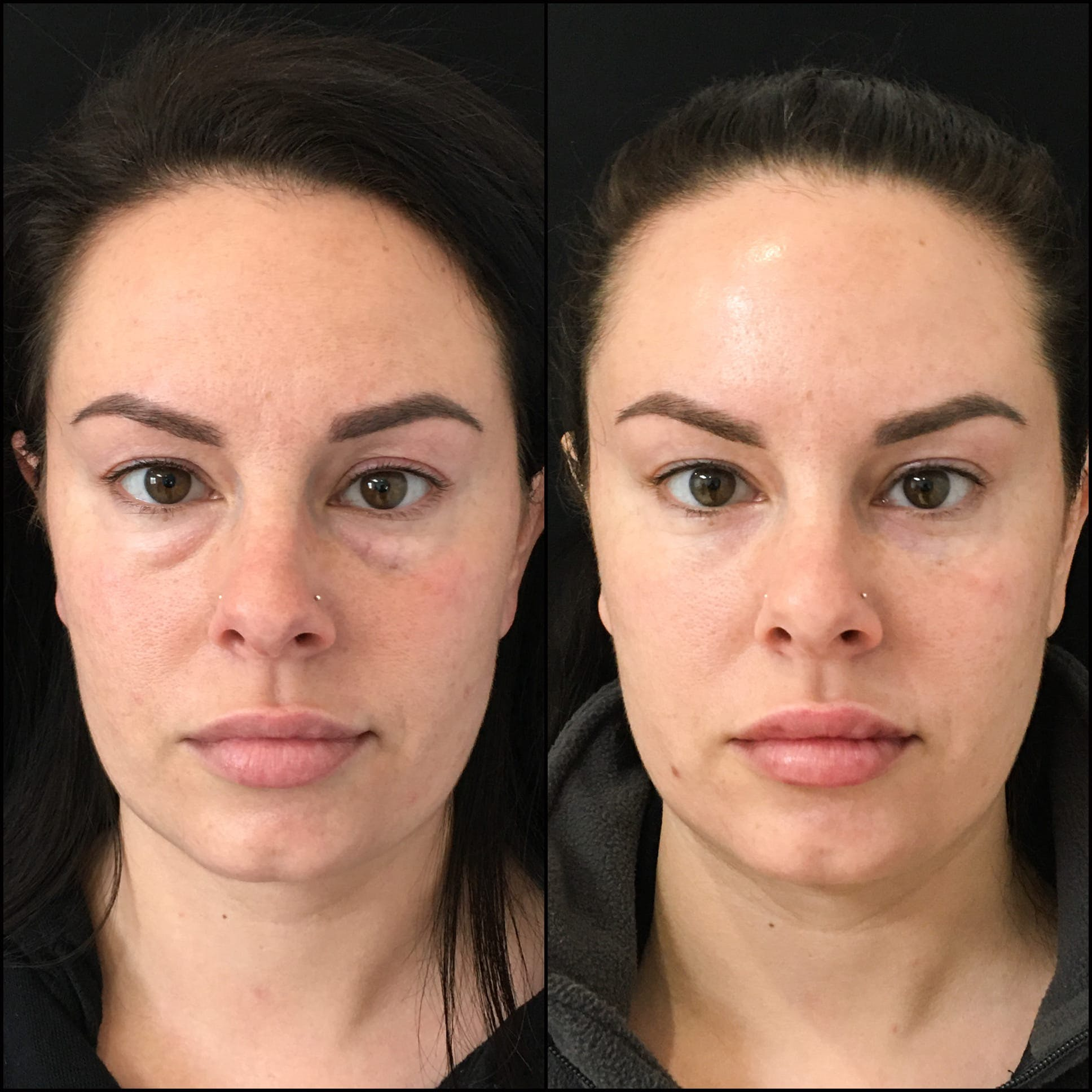 Lower Blepharoplasty Gallery - Patient 53591861 - Image 1