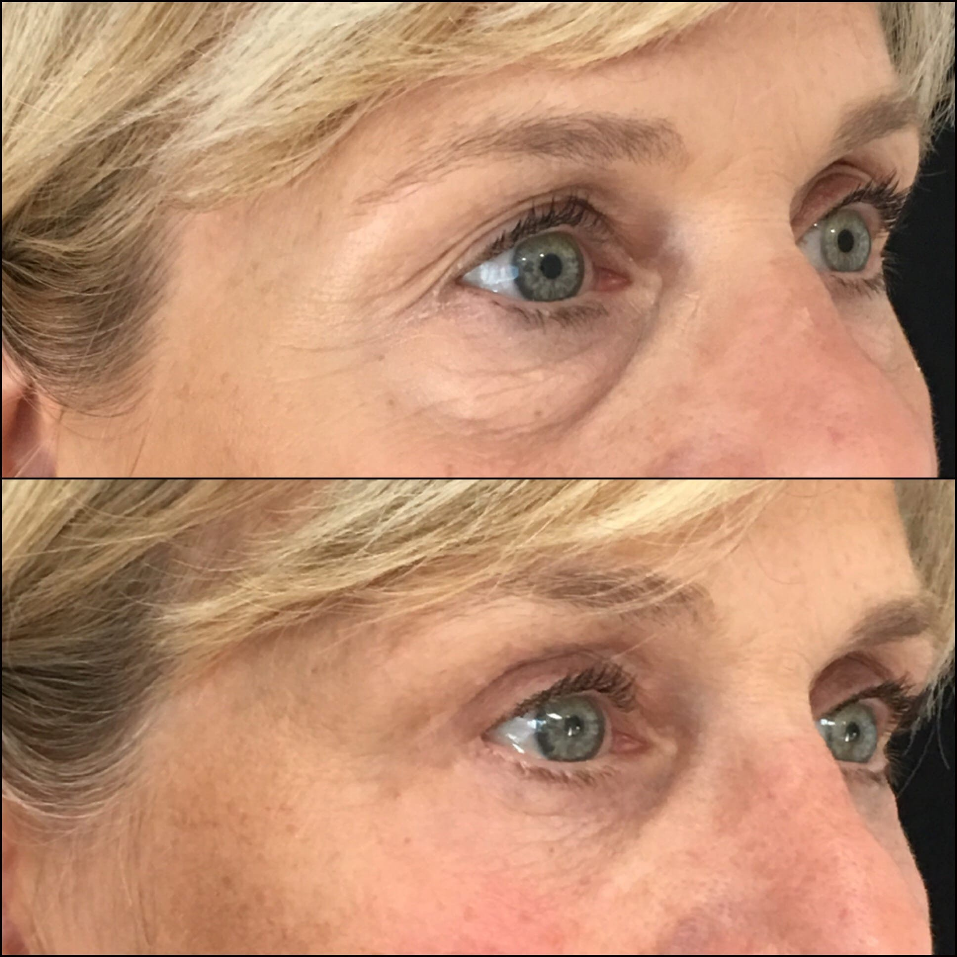 Lower Blepharoplasty Gallery - Patient 53591862 - Image 1
