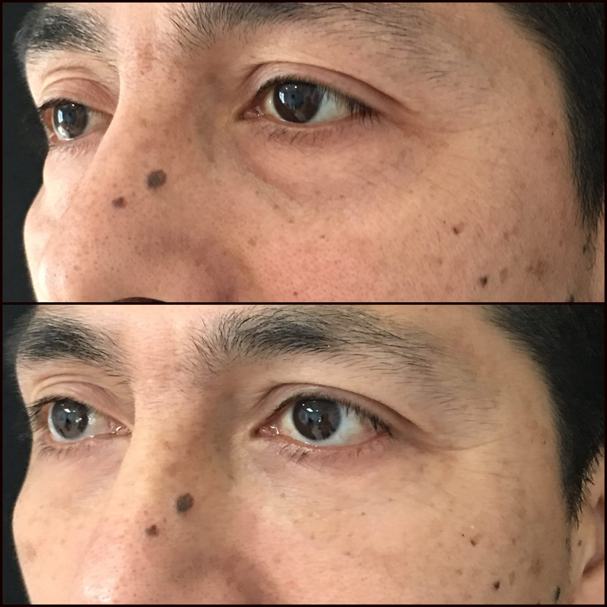 Lower Blepharoplasty Gallery - Patient 53591863 - Image 1
