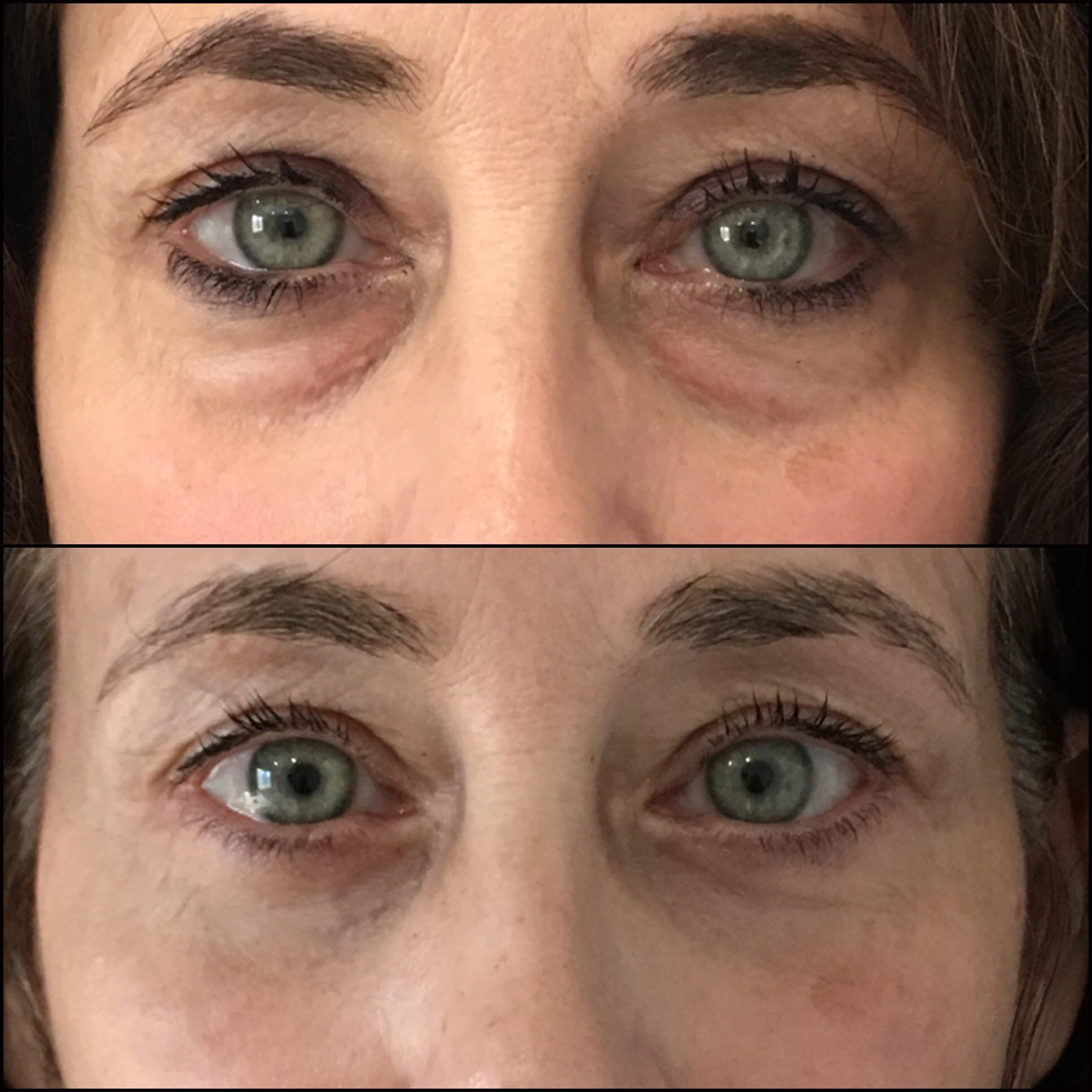 Lower Blepharoplasty Gallery - Patient 53591864 - Image 1