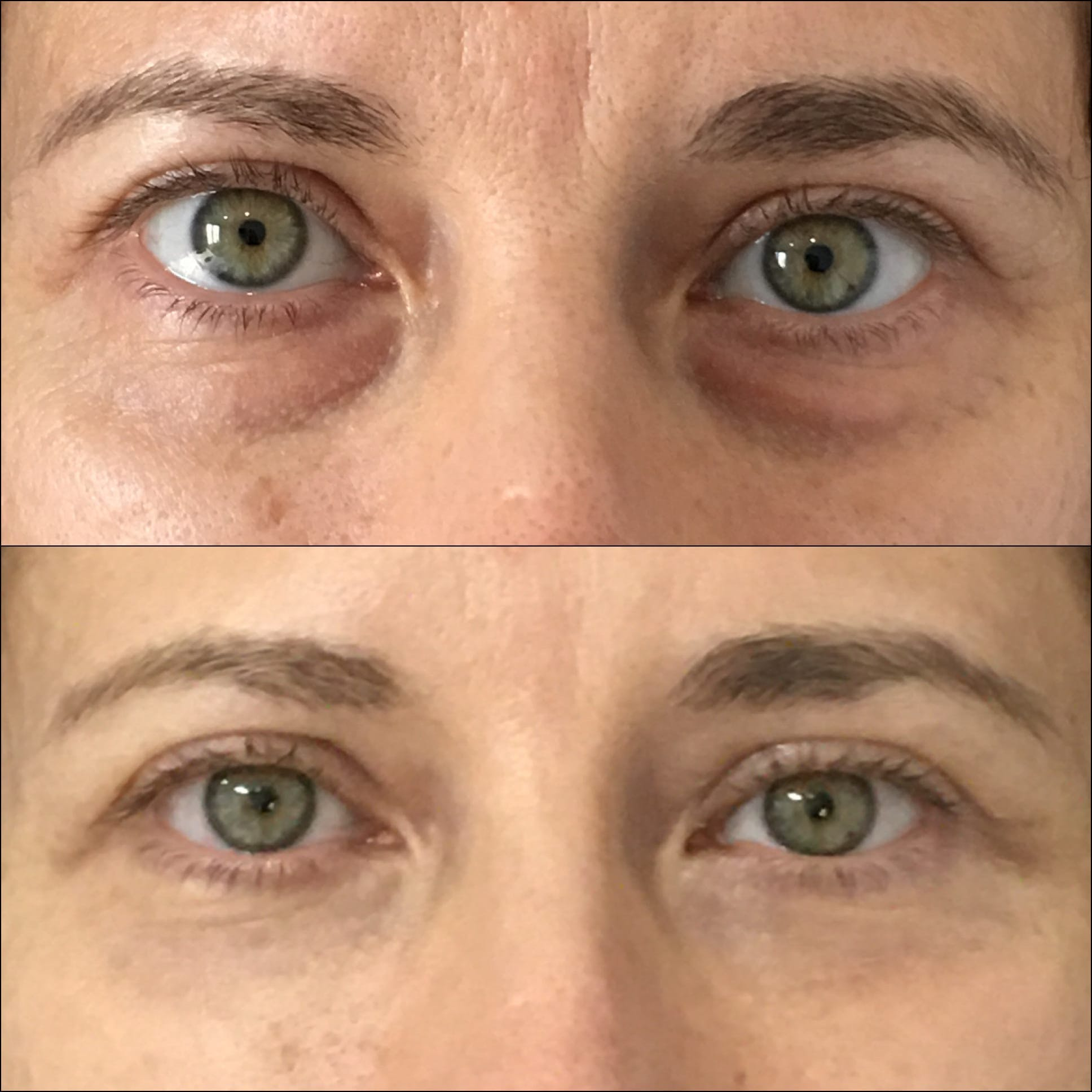 Lower Blepharoplasty Gallery - Patient 53591865 - Image 1
