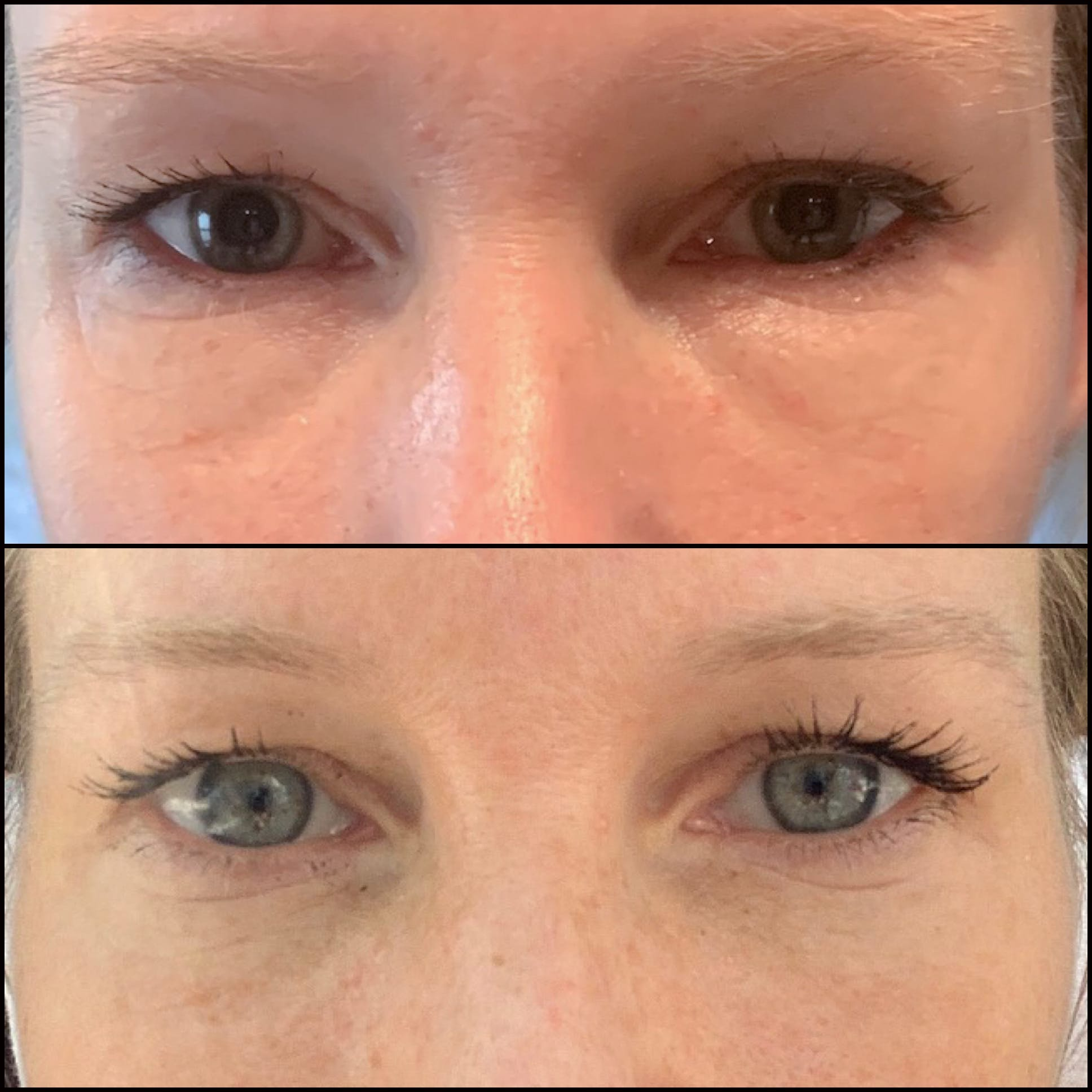 Lower Blepharoplasty Gallery - Patient 53591868 - Image 1