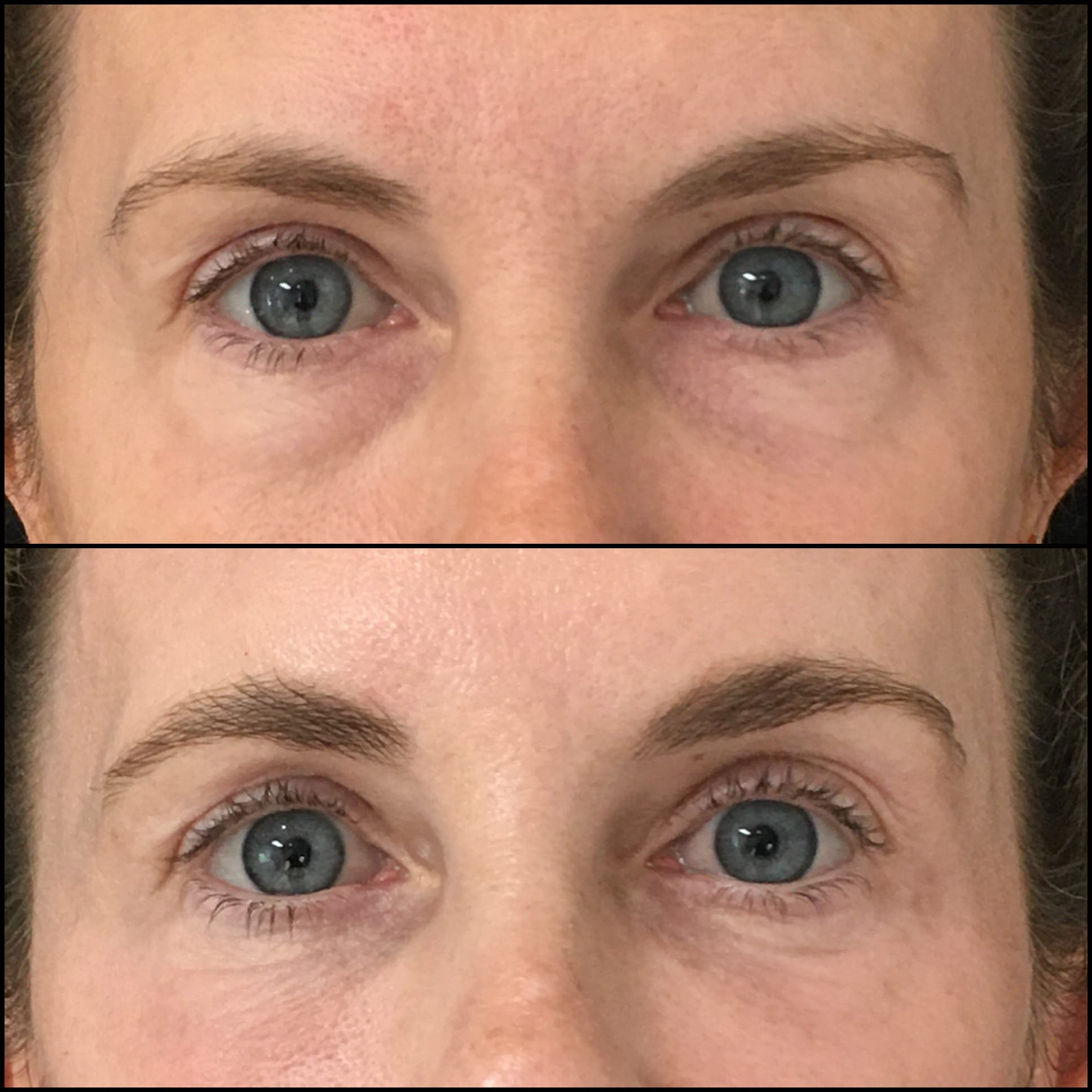 Lower Blepharoplasty Gallery - Patient 53591870 - Image 1