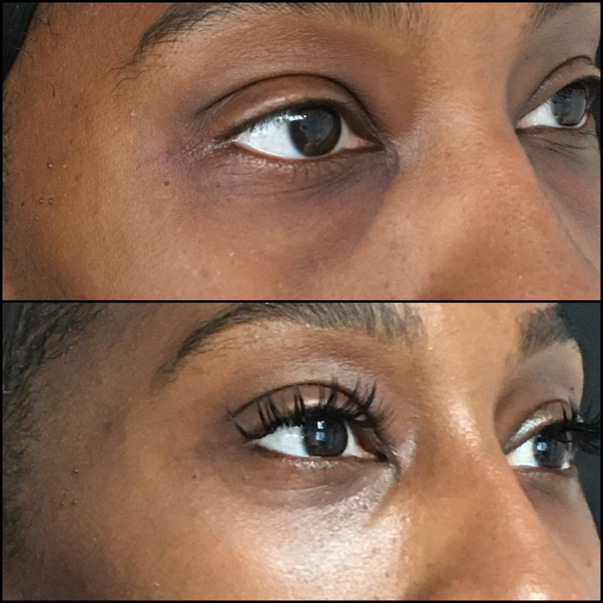 Lower Blepharoplasty Gallery - Patient 53591871 - Image 1