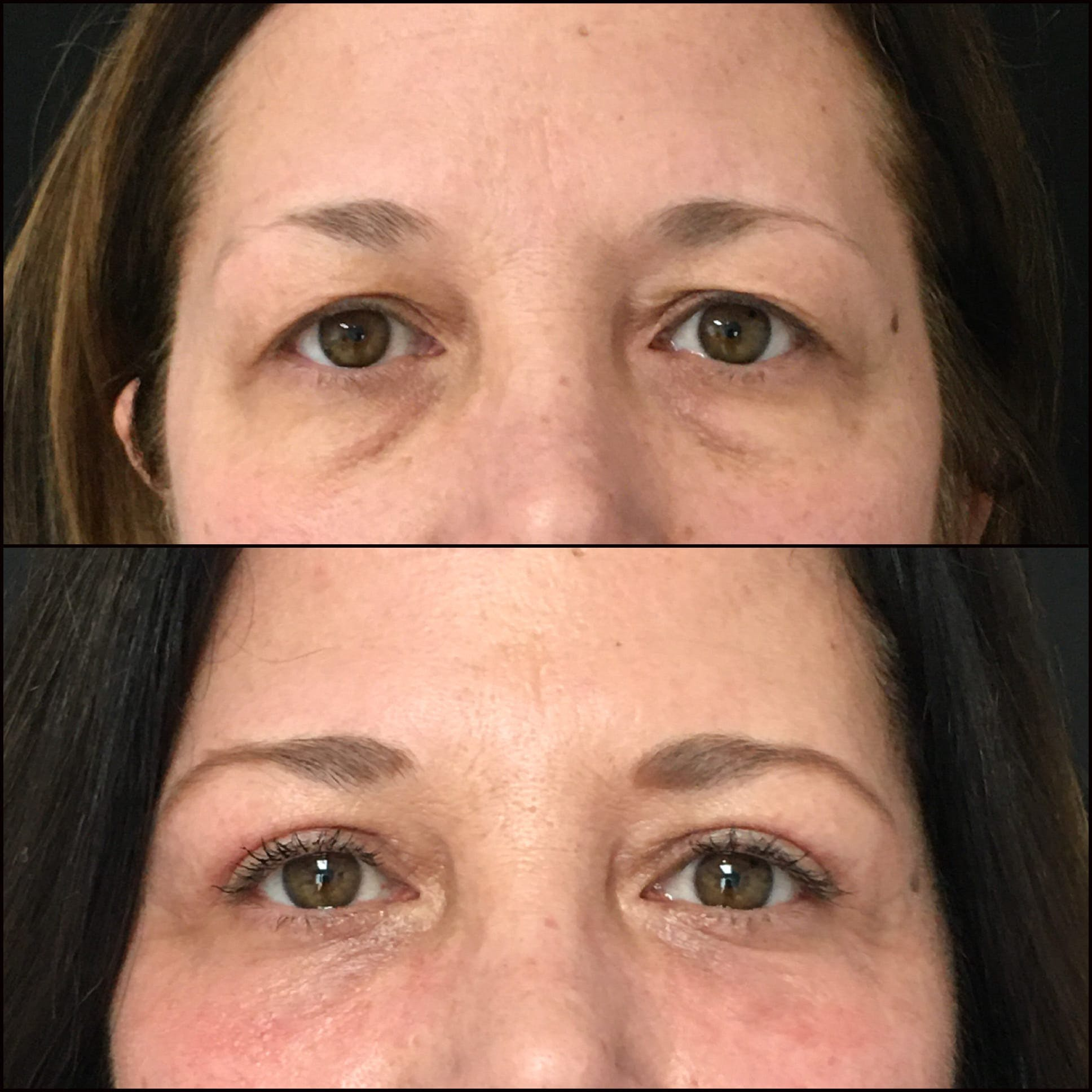 Lower Blepharoplasty Gallery - Patient 53591874 - Image 1