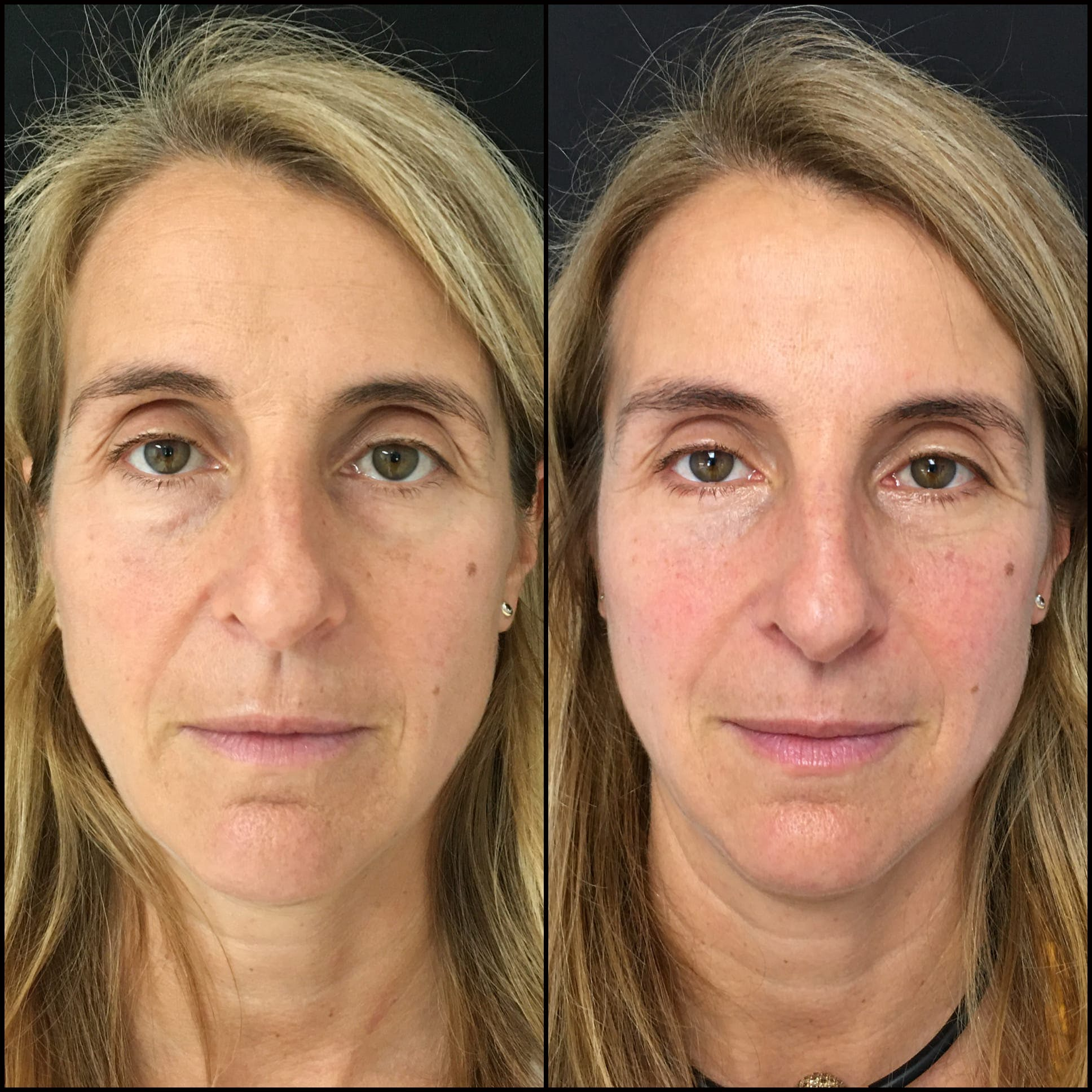 Lower Blepharoplasty Gallery - Patient 53591875 - Image 1