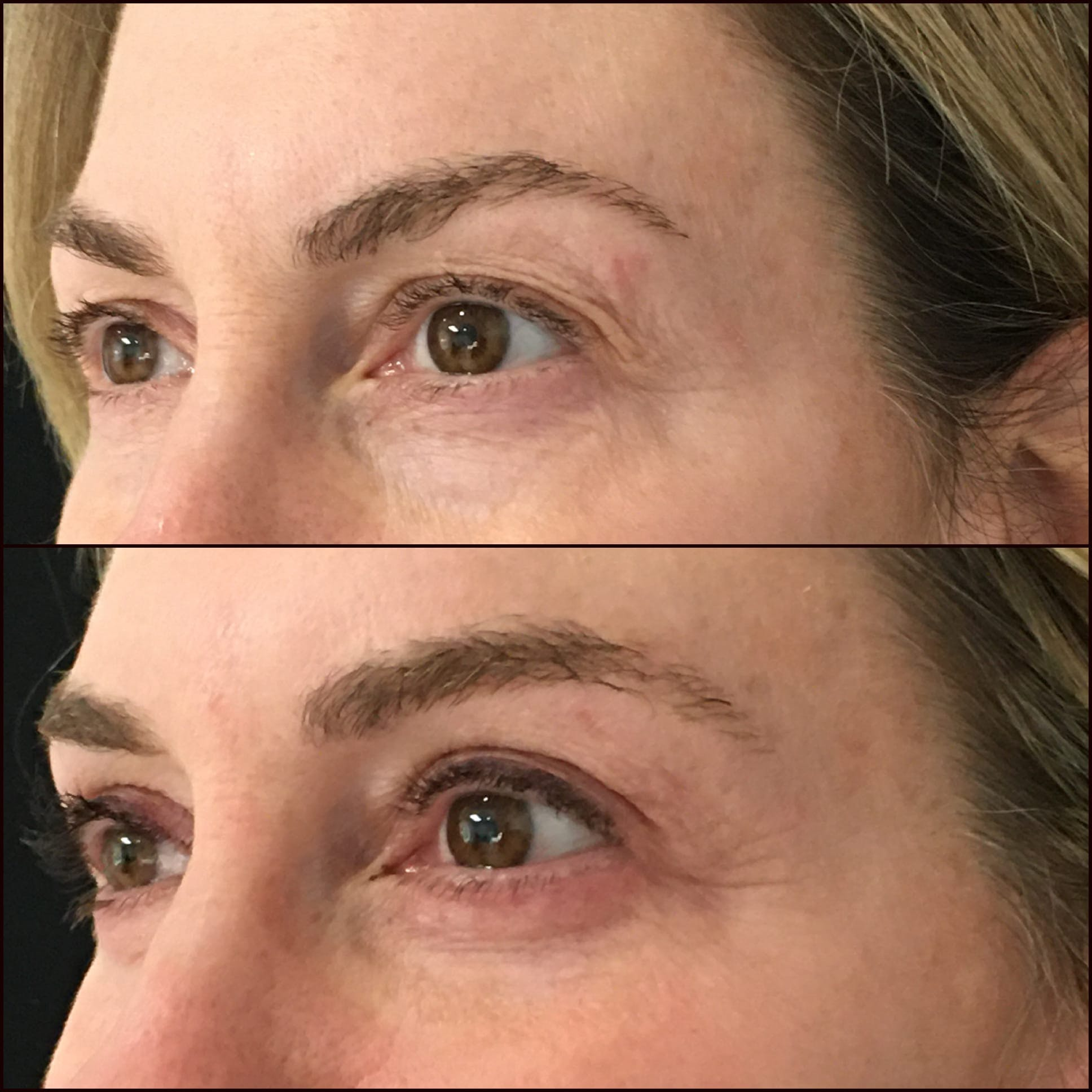 Lower Blepharoplasty Gallery - Patient 53591876 - Image 1