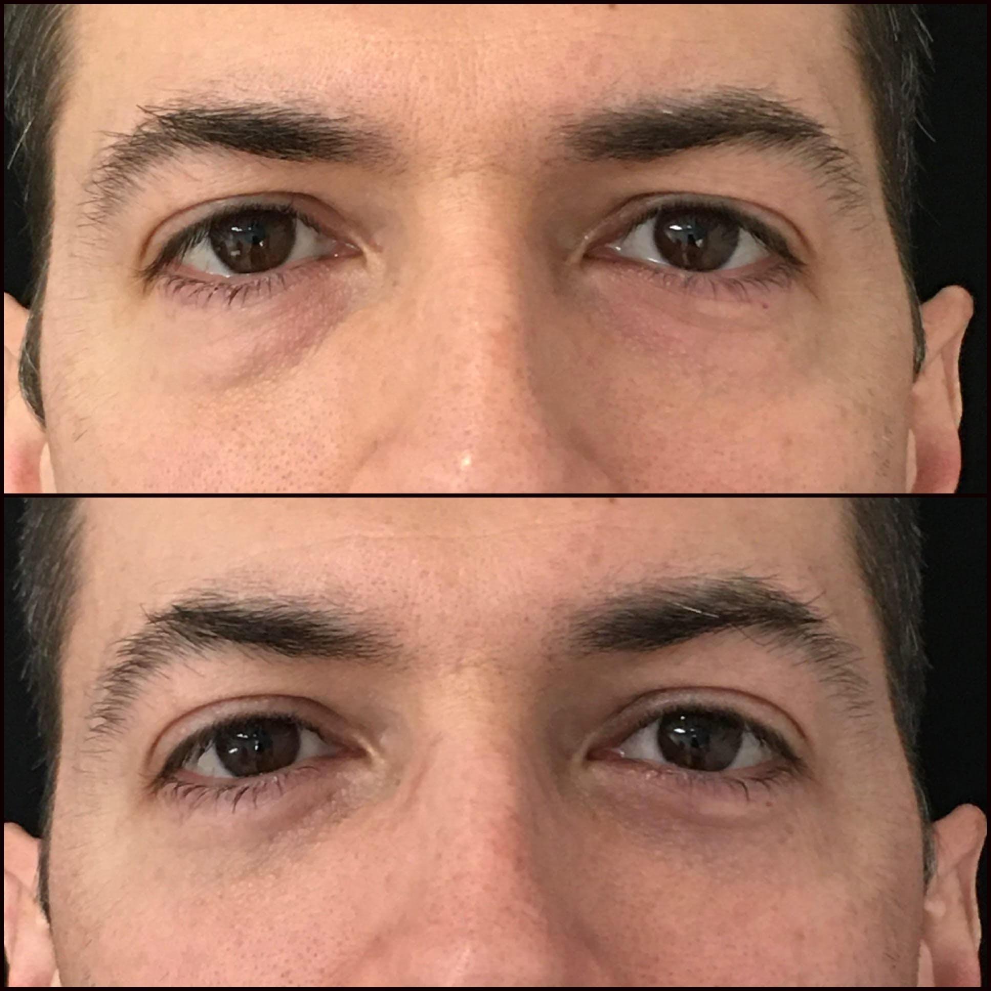 Lower Blepharoplasty Gallery - Patient 53591877 - Image 1