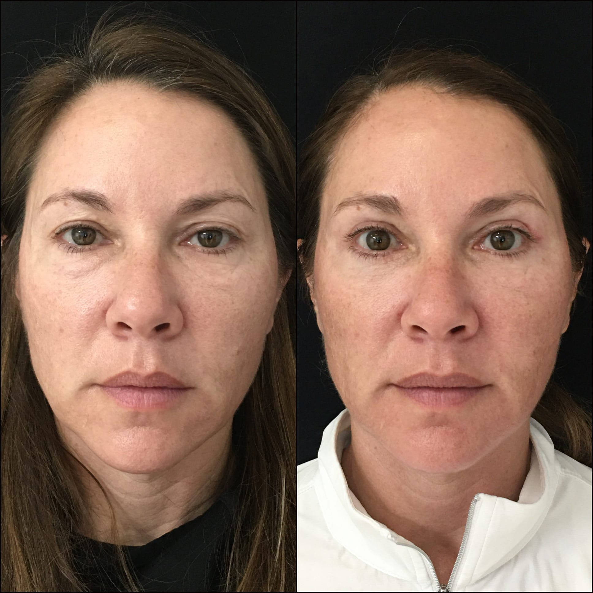 Lower Blepharoplasty Gallery - Patient 53591878 - Image 1