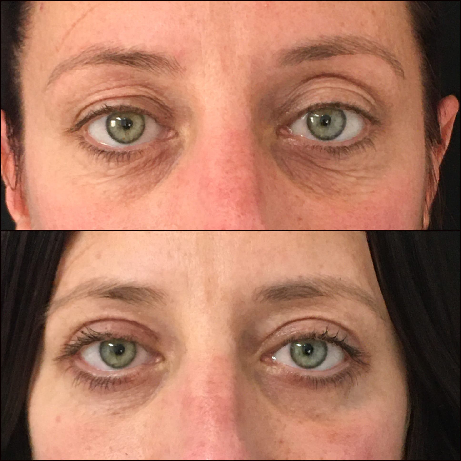 Lower Blepharoplasty Gallery - Patient 53591880 - Image 1