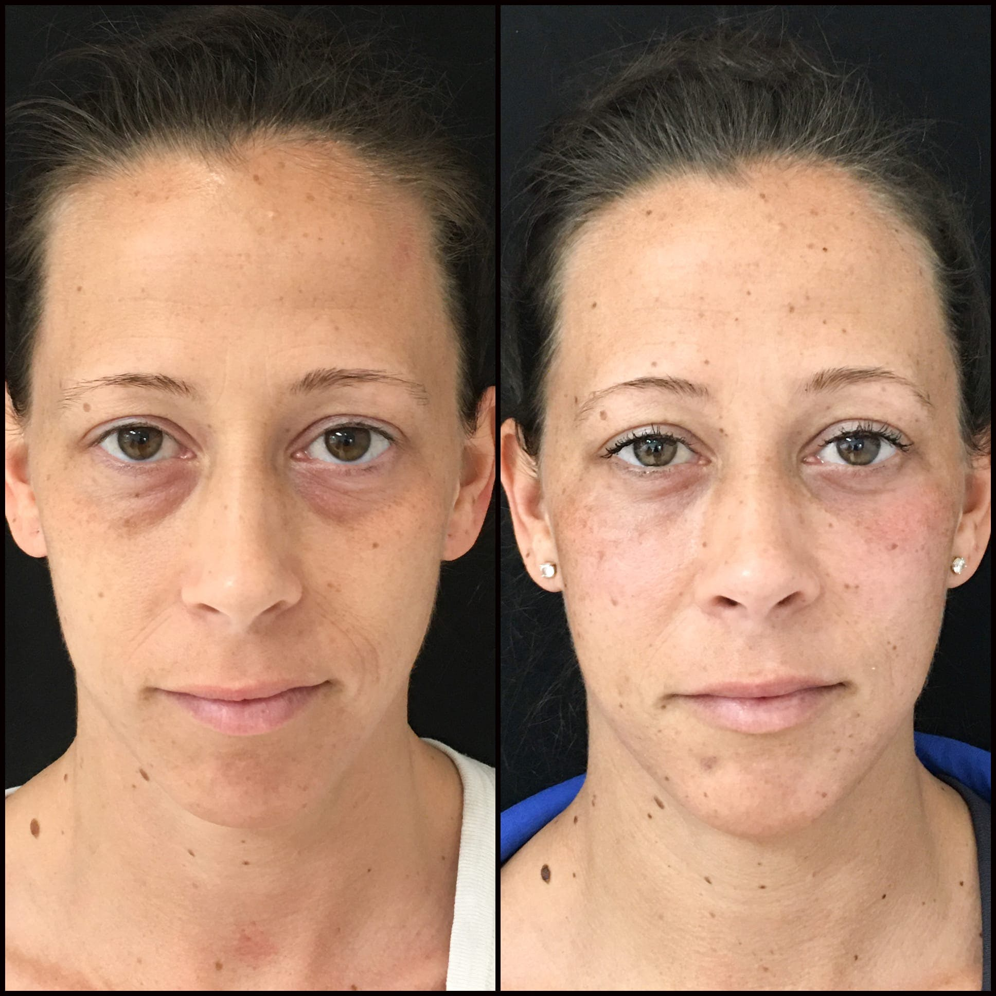 Lower Blepharoplasty Gallery - Patient 53591881 - Image 1
