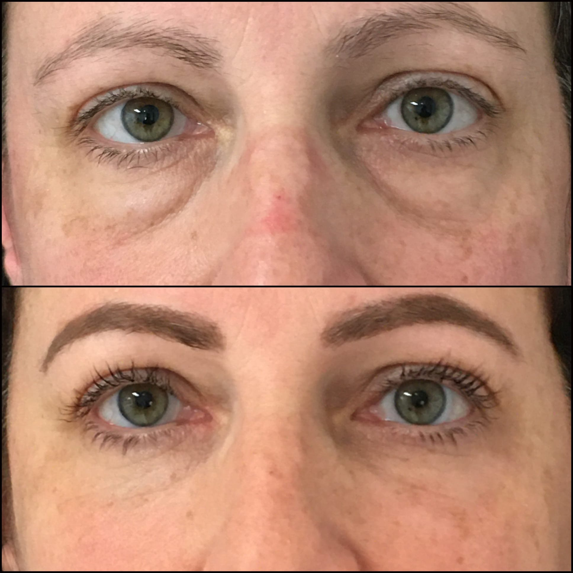 Lower Blepharoplasty Gallery - Patient 53591882 - Image 1