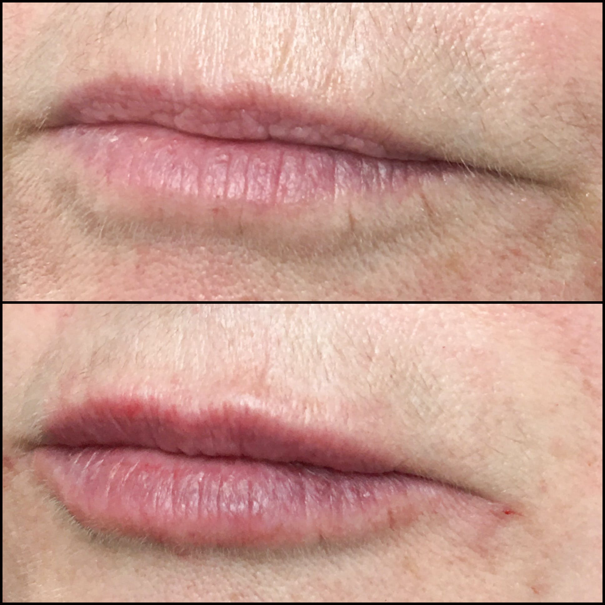 Lip Enhancement Gallery - Patient 53591941 - Image 1