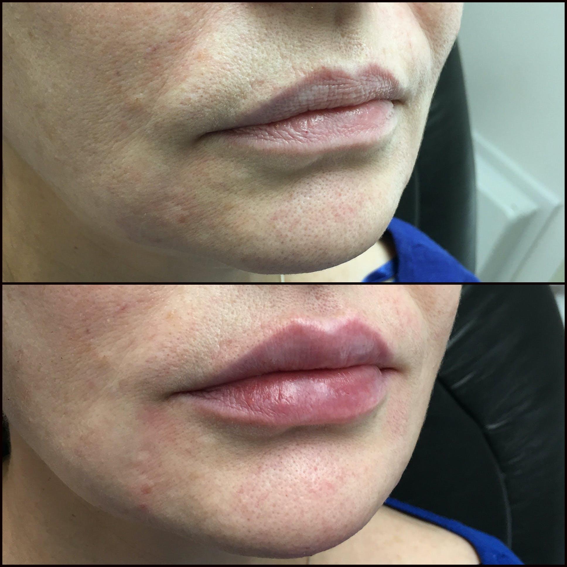 Lip Enhancement Gallery - Patient 53591942 - Image 1