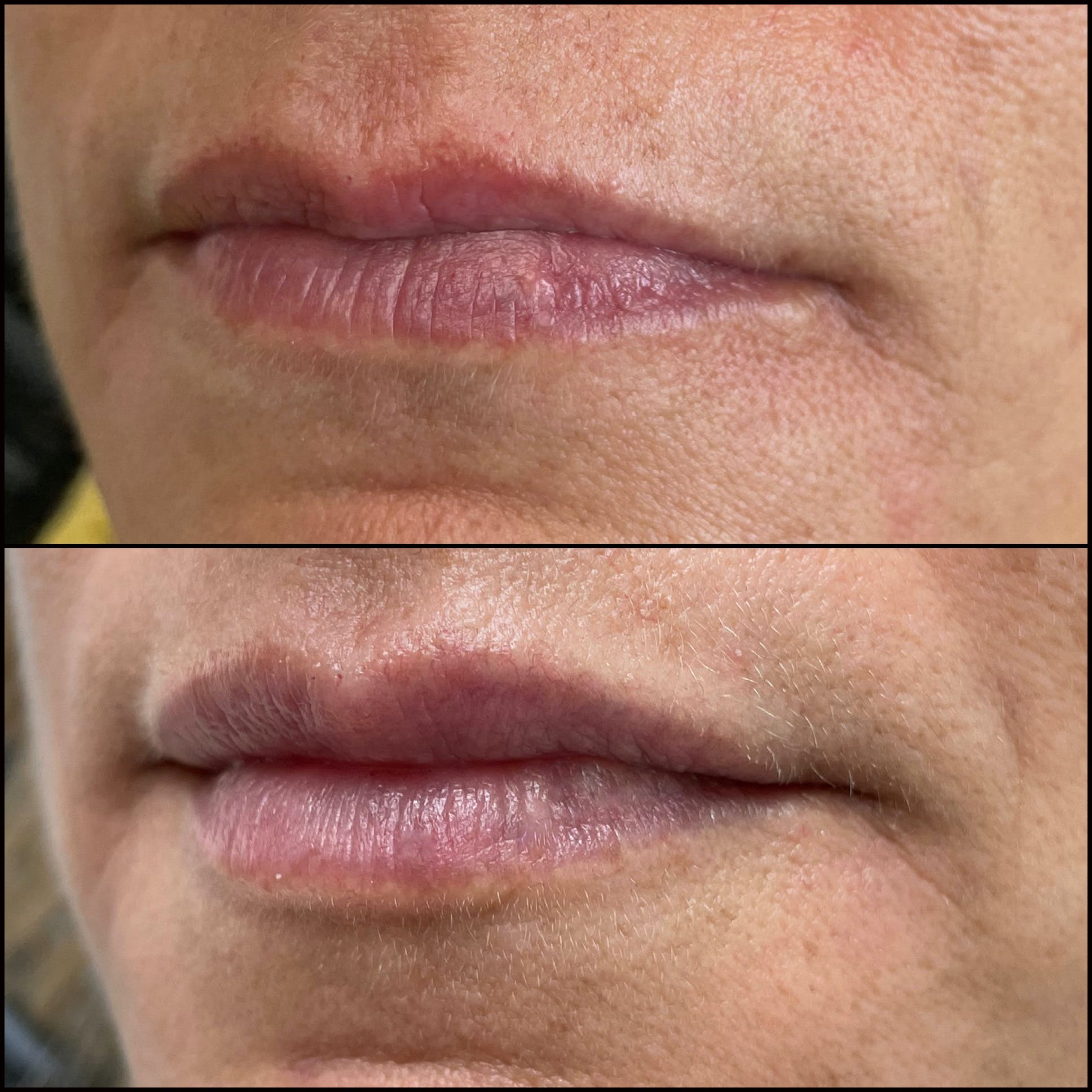 Lip Enhancement Gallery - Patient 53591943 - Image 1