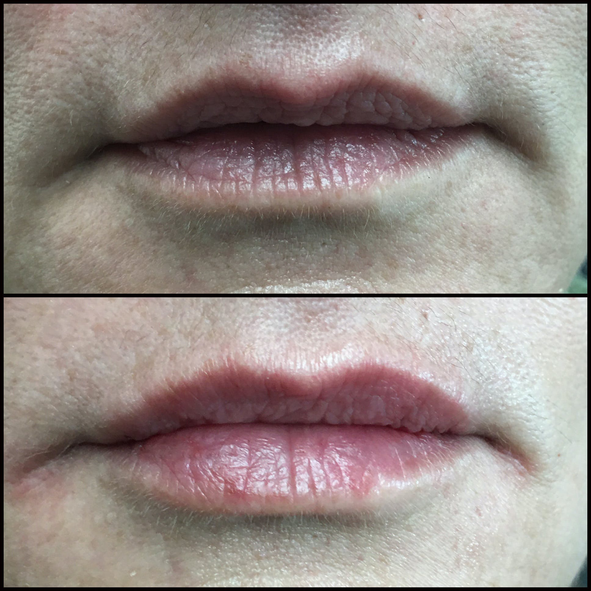 Lip Enhancement Gallery - Patient 53591944 - Image 1