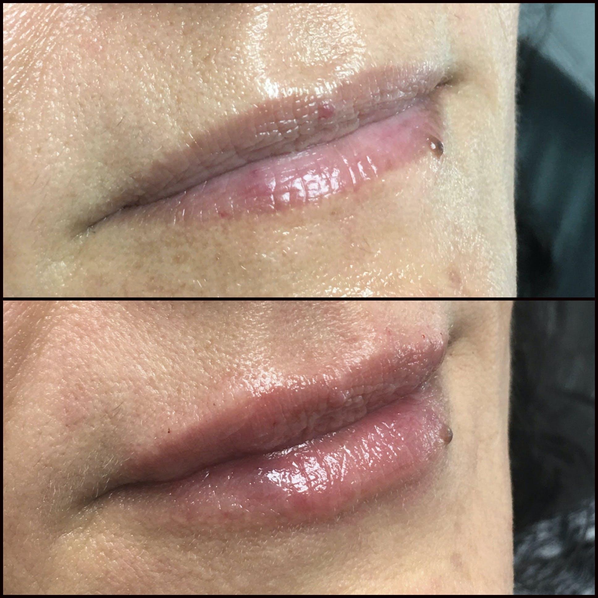 Lip Enhancement Gallery - Patient 53591946 - Image 1