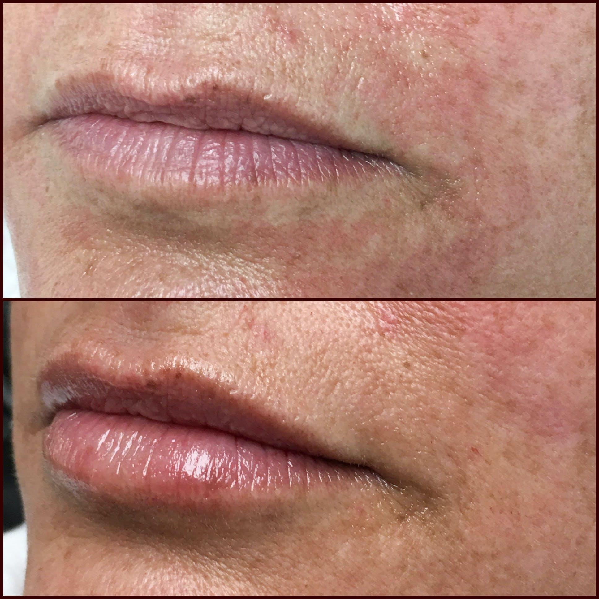 Lip Enhancement Gallery - Patient 53591947 - Image 1