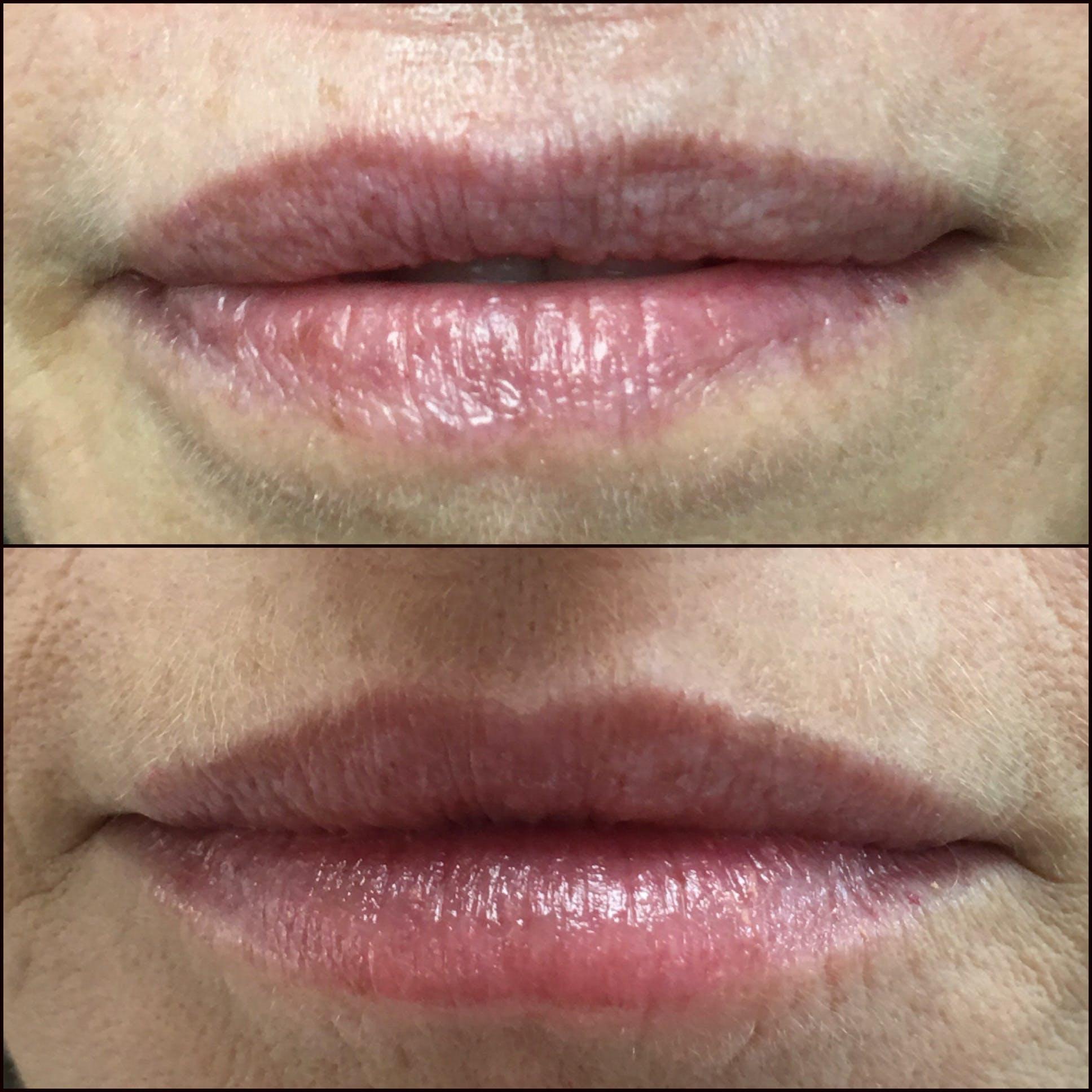 Lip Enhancement Gallery - Patient 53591948 - Image 1