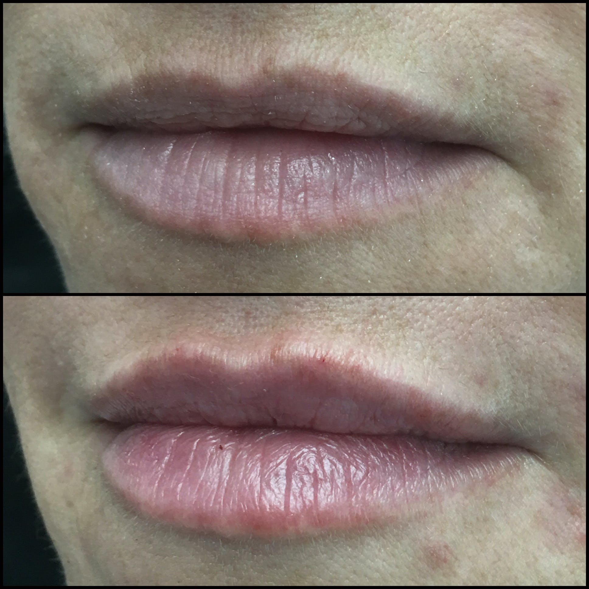Lip Enhancement Gallery - Patient 53591950 - Image 1