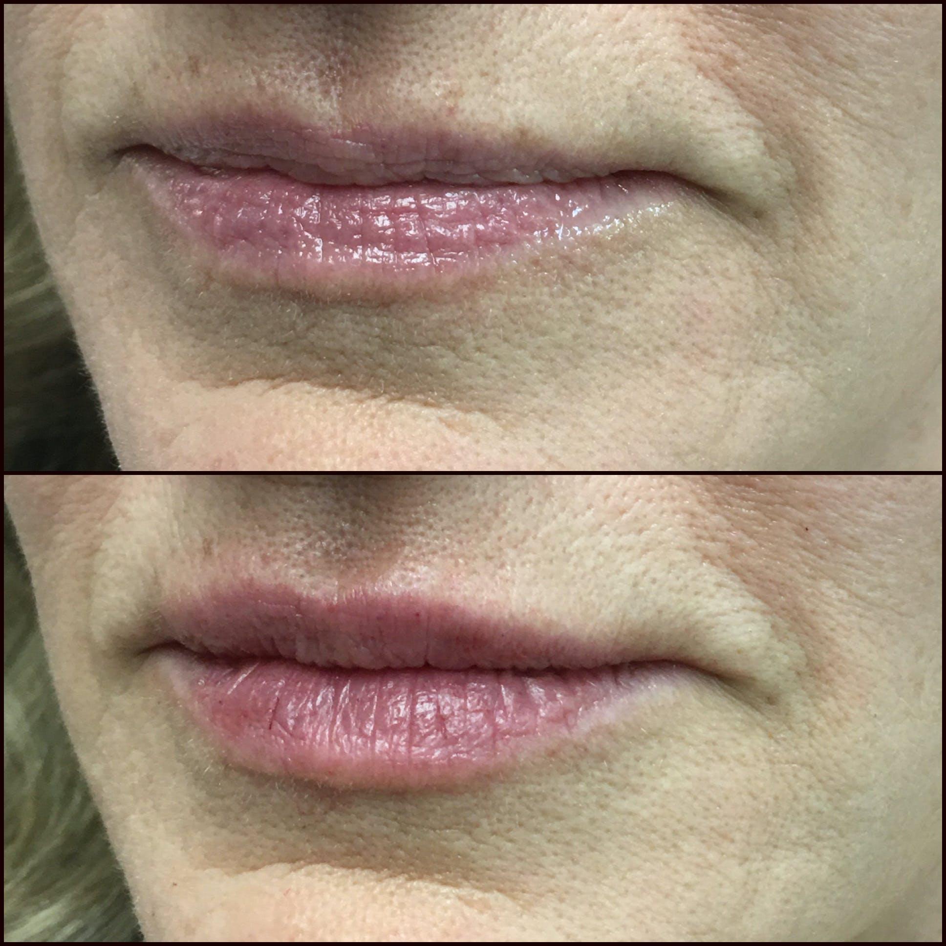 Lip Enhancement Gallery - Patient 53591952 - Image 1