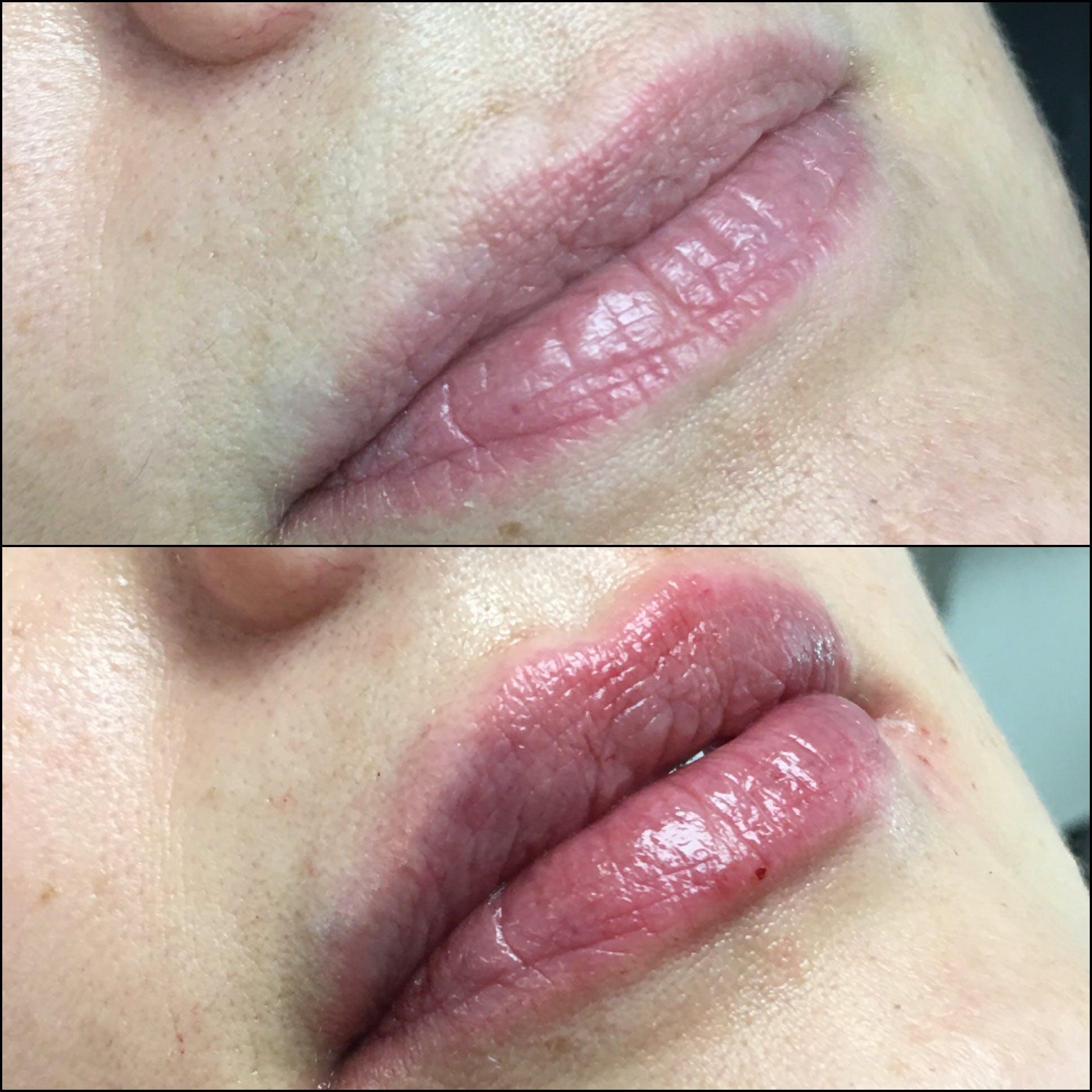 Lip Enhancement Gallery - Patient 53591953 - Image 1
