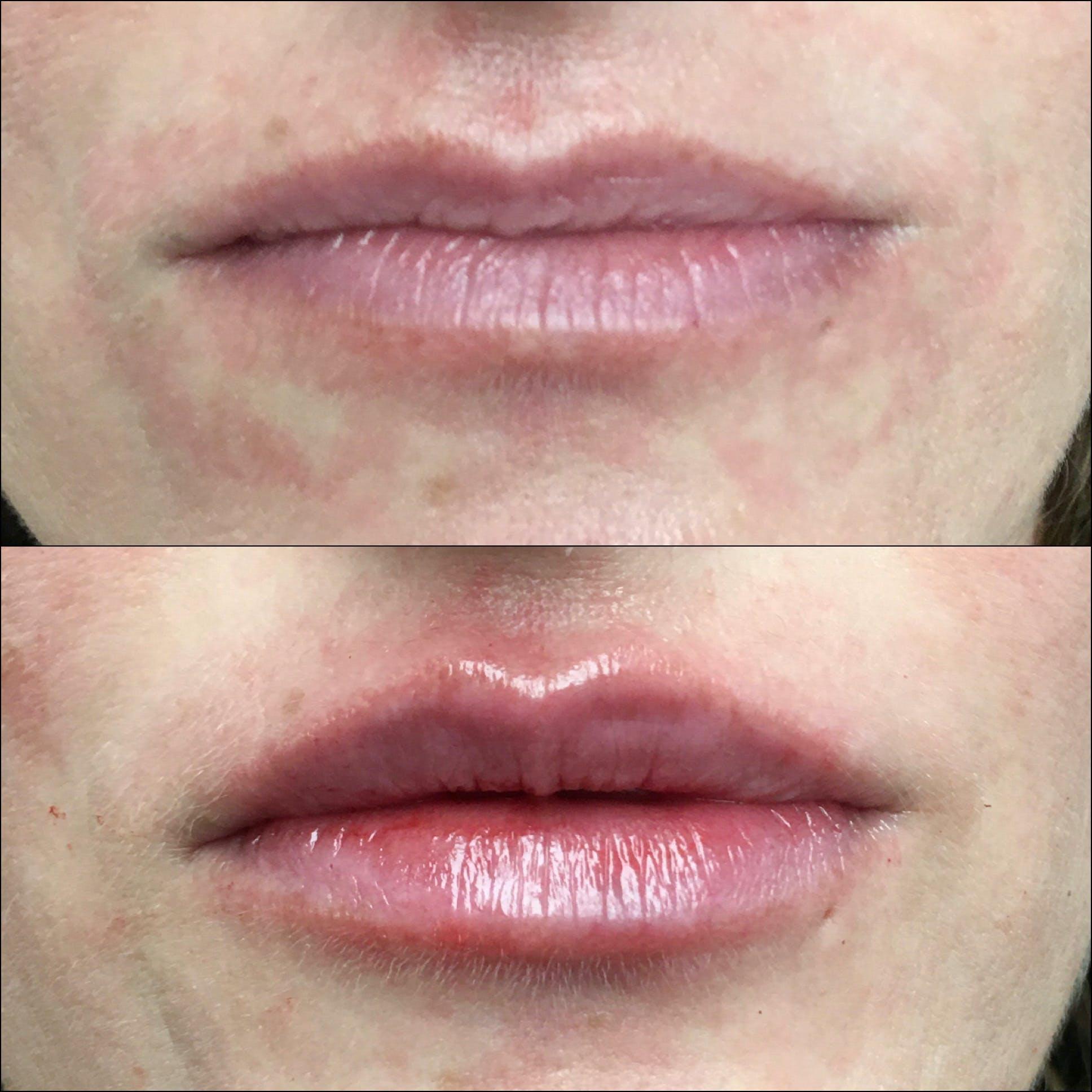 Lip Enhancement Gallery - Patient 53591954 - Image 1