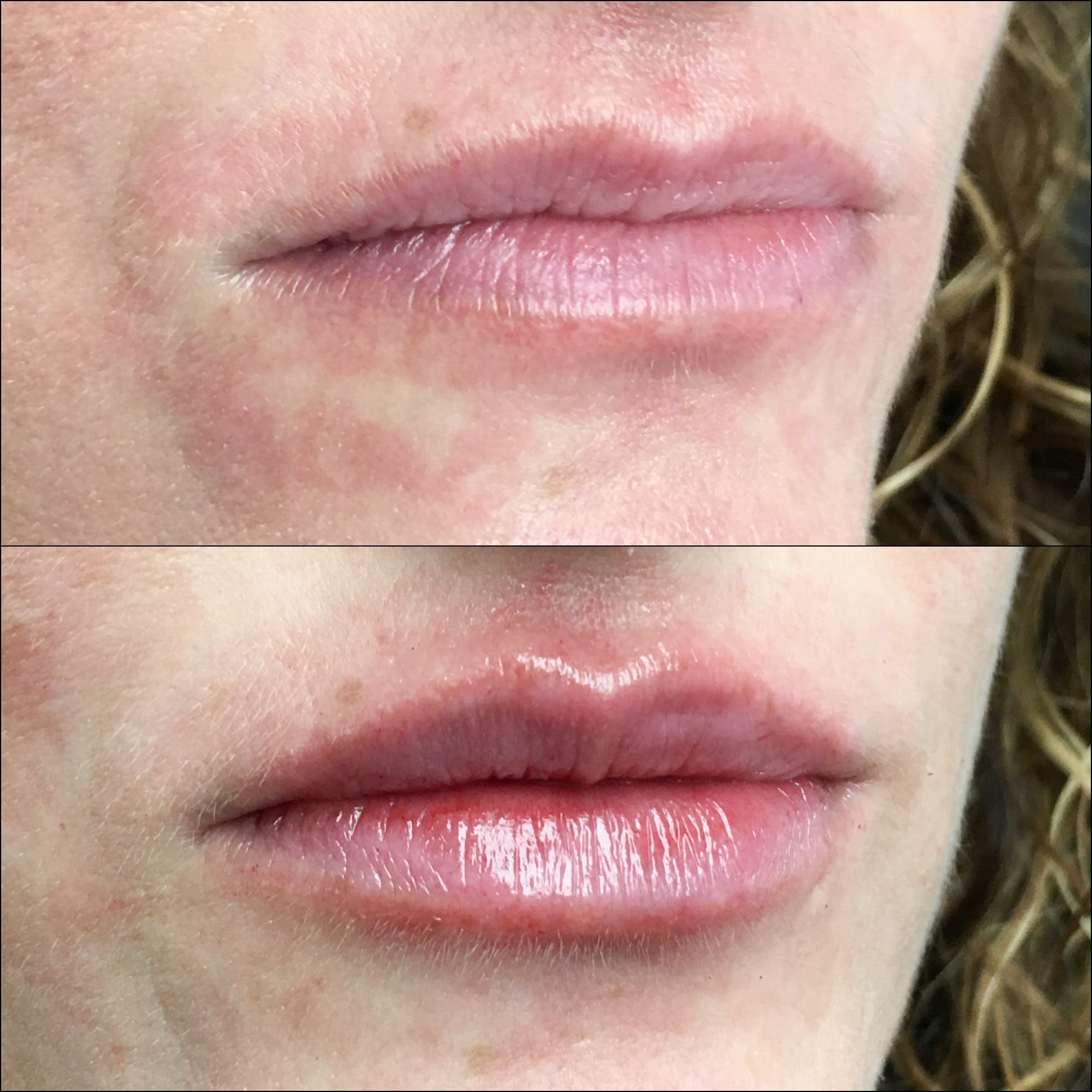 Lip Enhancement Gallery - Patient 53591954 - Image 2