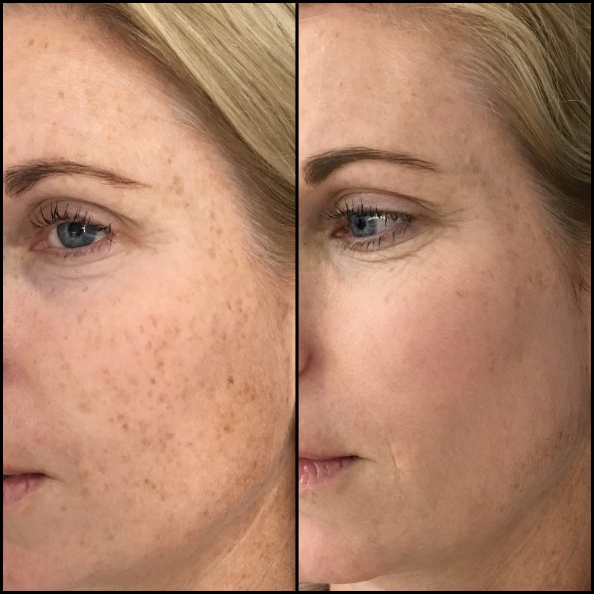 Laser Treatments Gallery - Patient 53599445 - Image 1