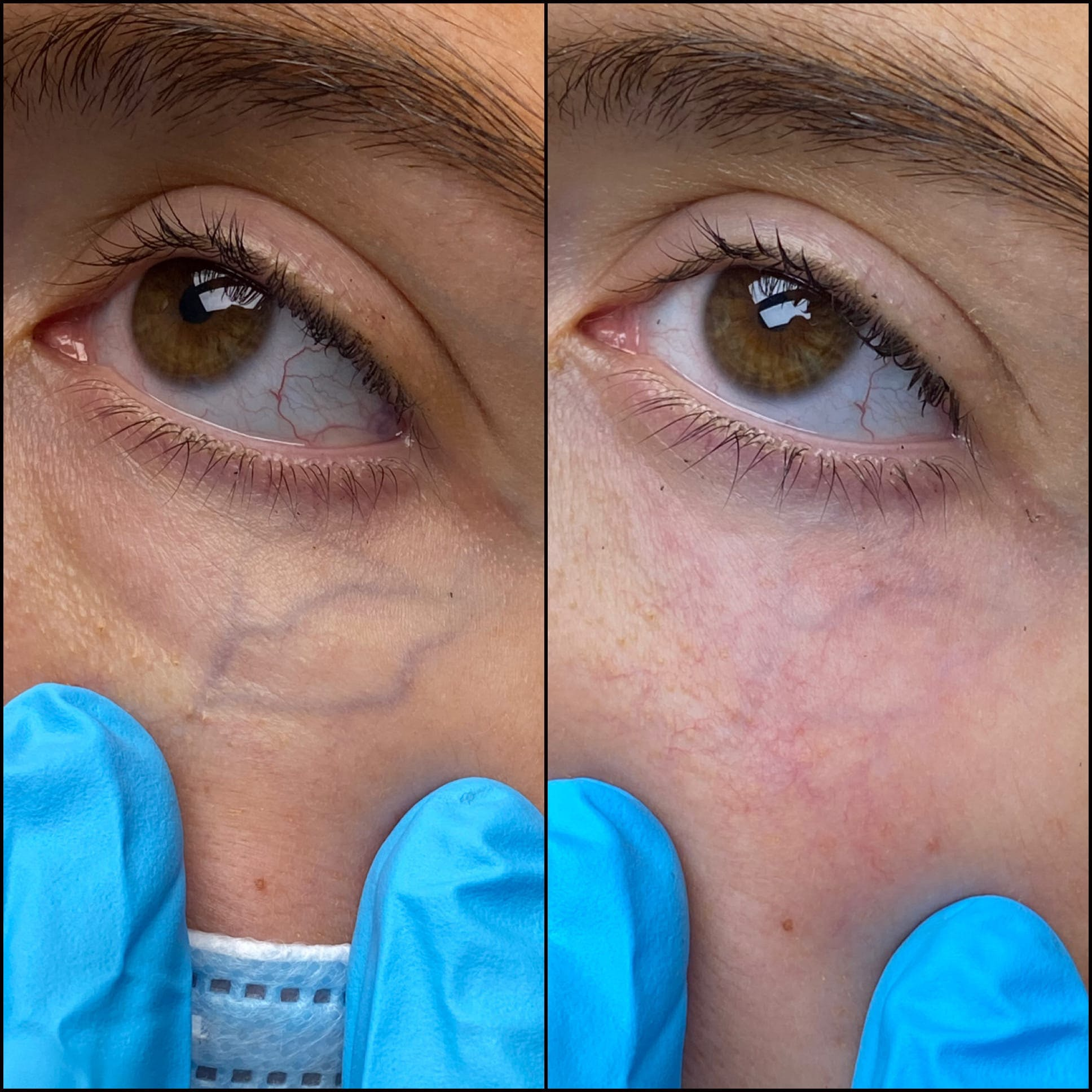 Laser Treatments Gallery - Patient 53599447 - Image 1