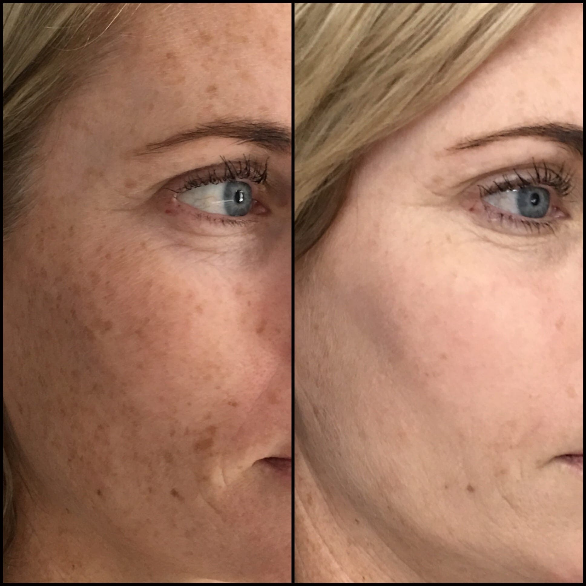 Laser Treatments Gallery - Patient 53599445 - Image 2