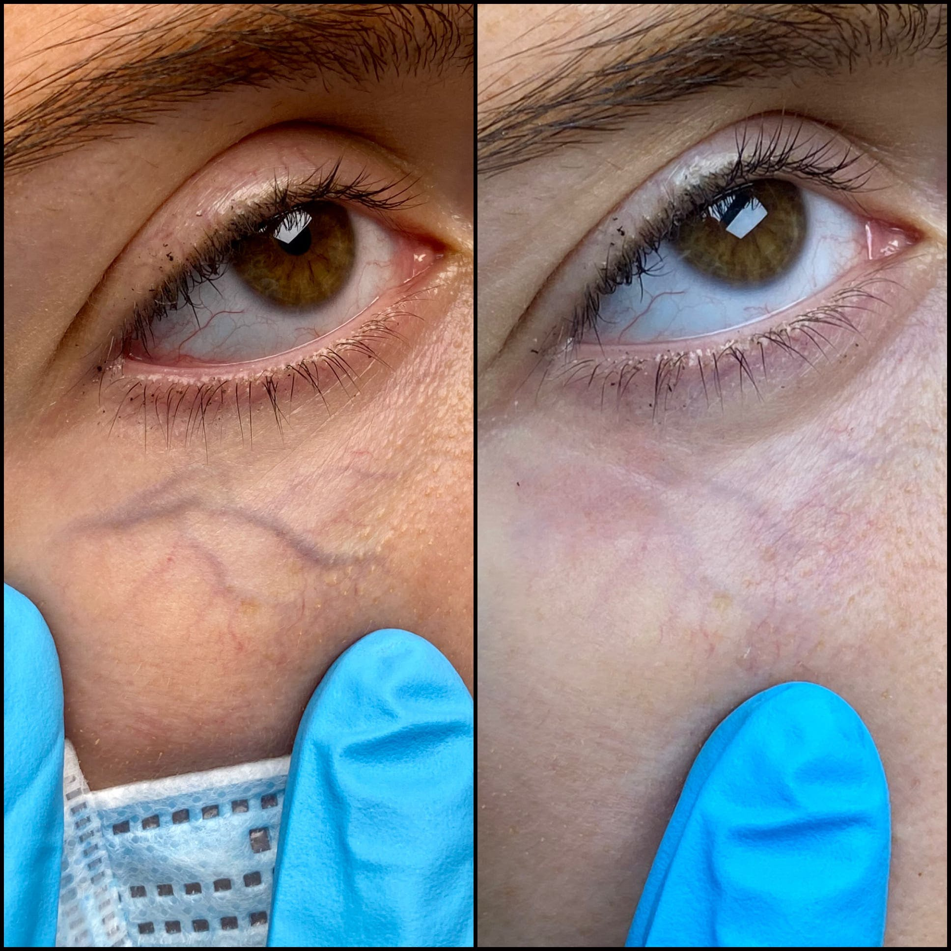 Laser Treatments Gallery - Patient 53599447 - Image 2