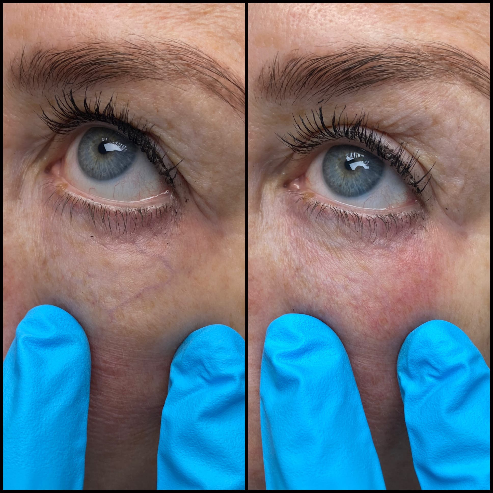 Laser Treatments Gallery - Patient 53599448 - Image 1