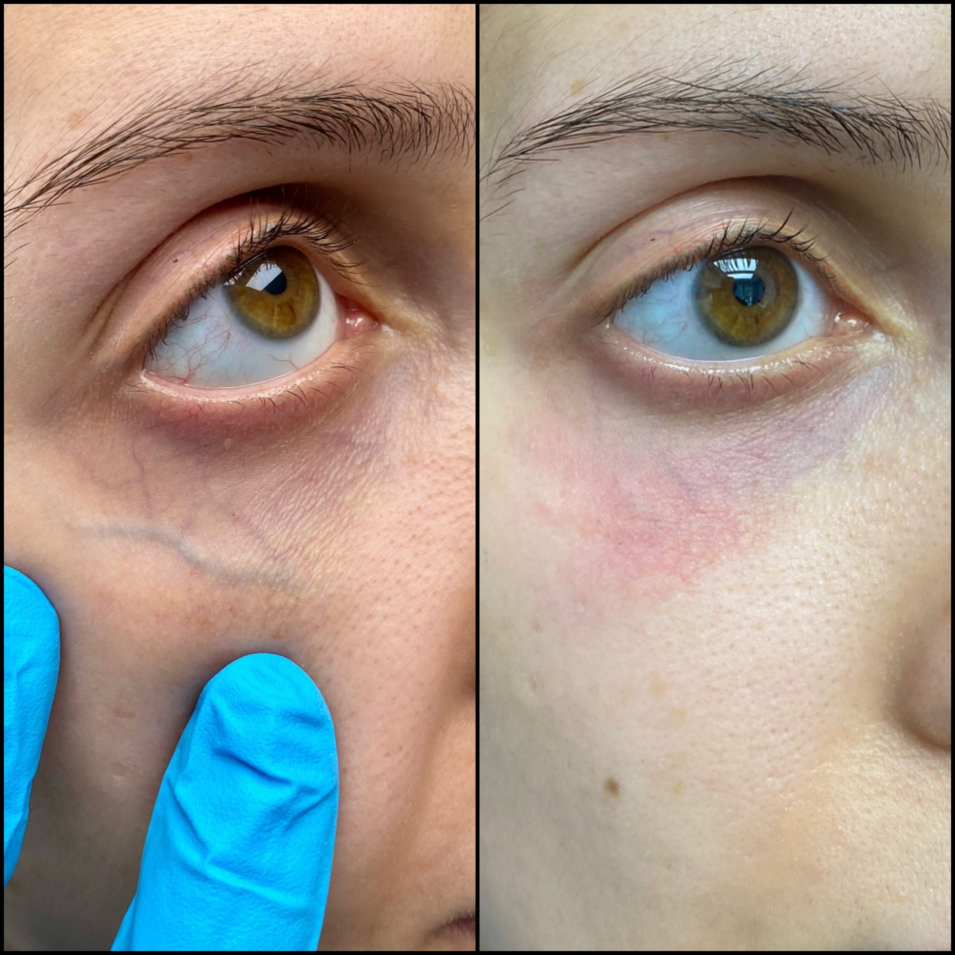 Laser Treatments Gallery - Patient 53599449 - Image 1