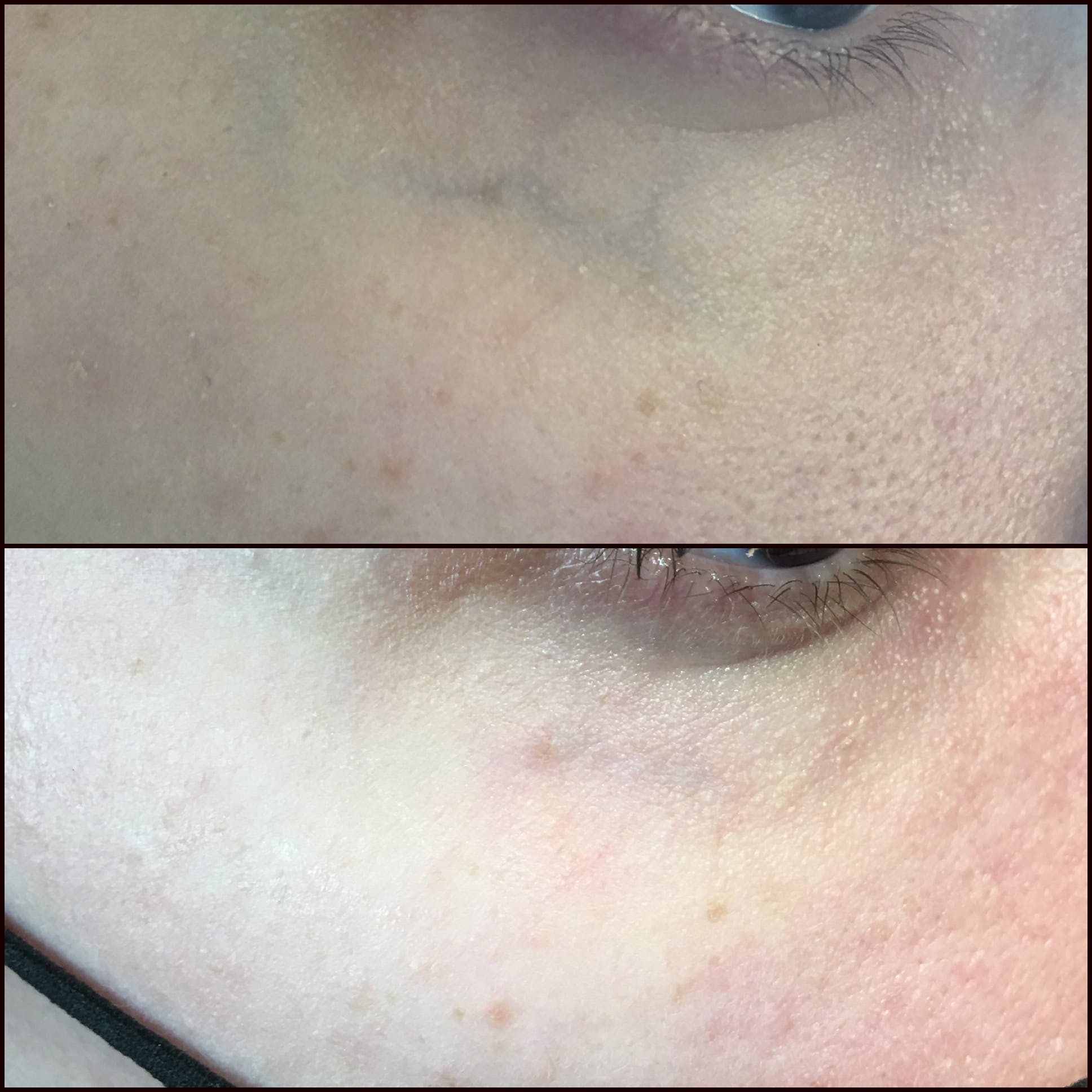 Laser Treatments Gallery - Patient 53599452 - Image 1