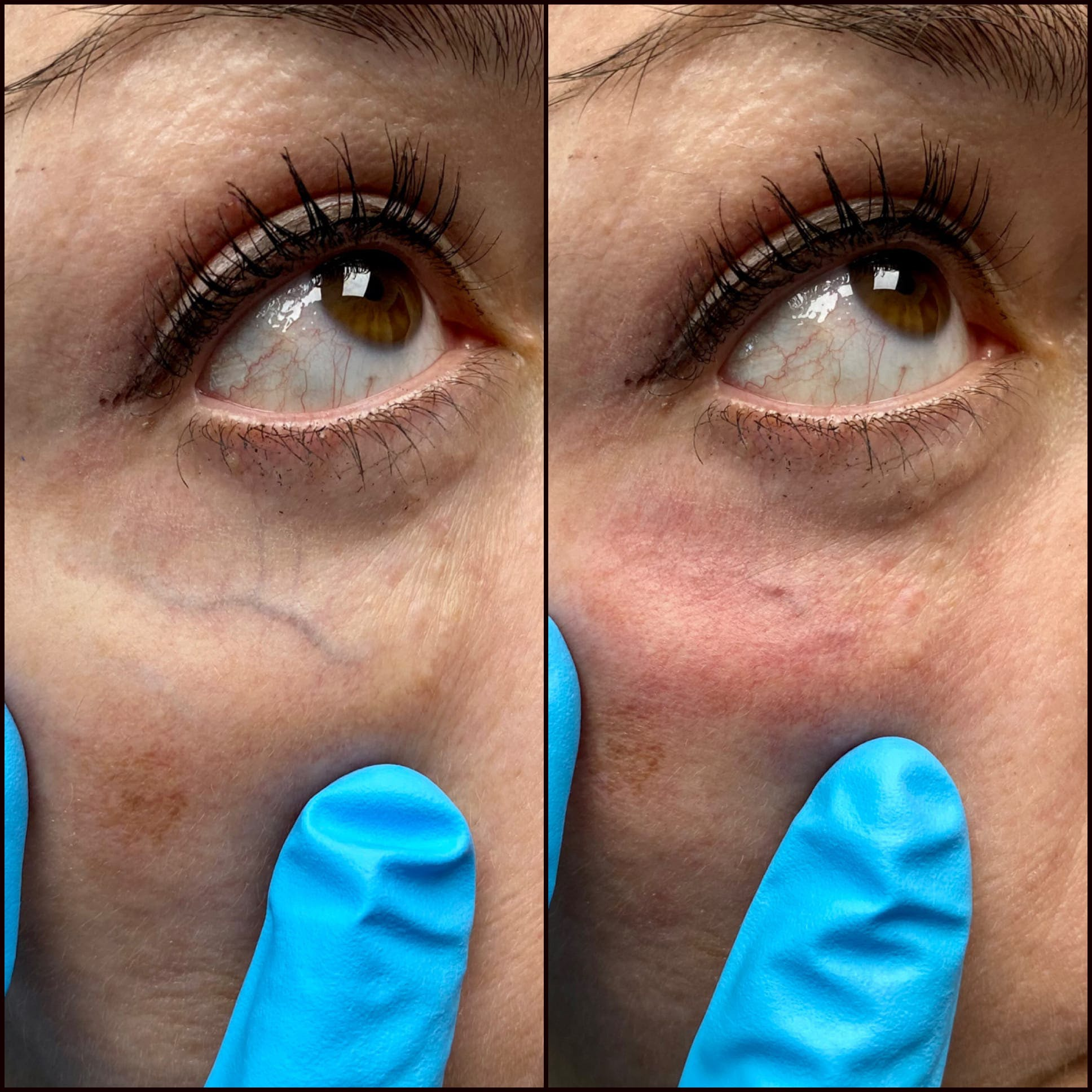 Laser Treatments Gallery - Patient 53599451 - Image 1