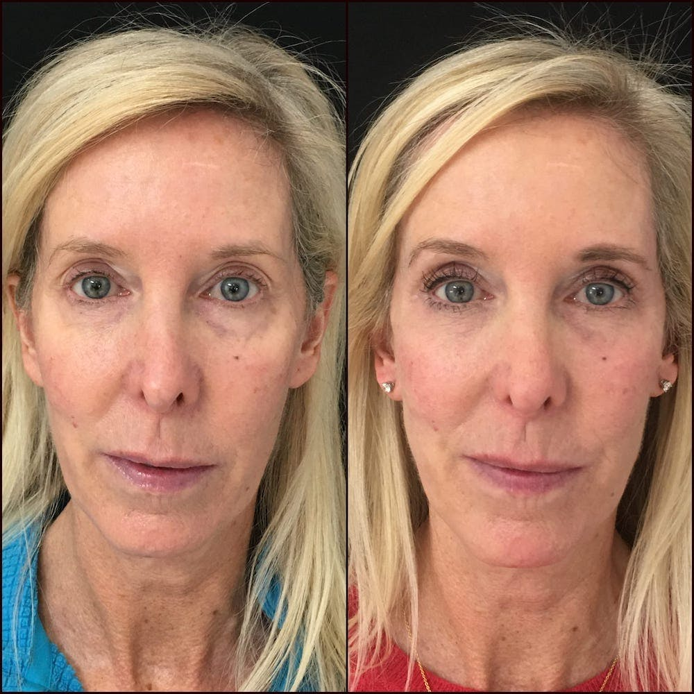 Lower Blepharoplasty Gallery - Patient 56142989 - Image 1