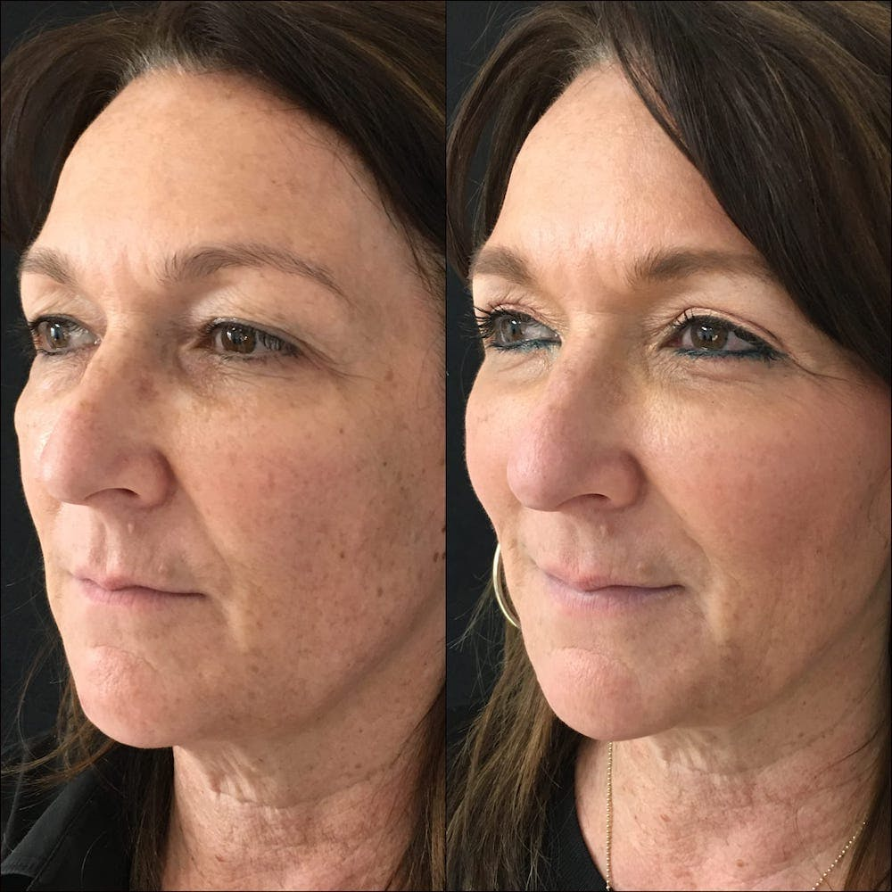Lower Blepharoplasty Gallery - Patient 56142990 - Image 1