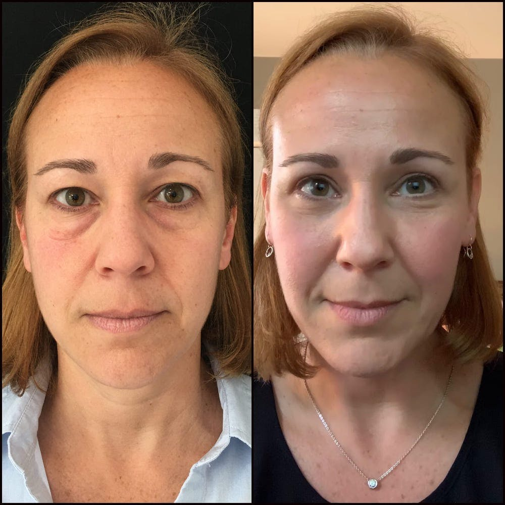 Lower Blepharoplasty Gallery - Patient 56142988 - Image 1