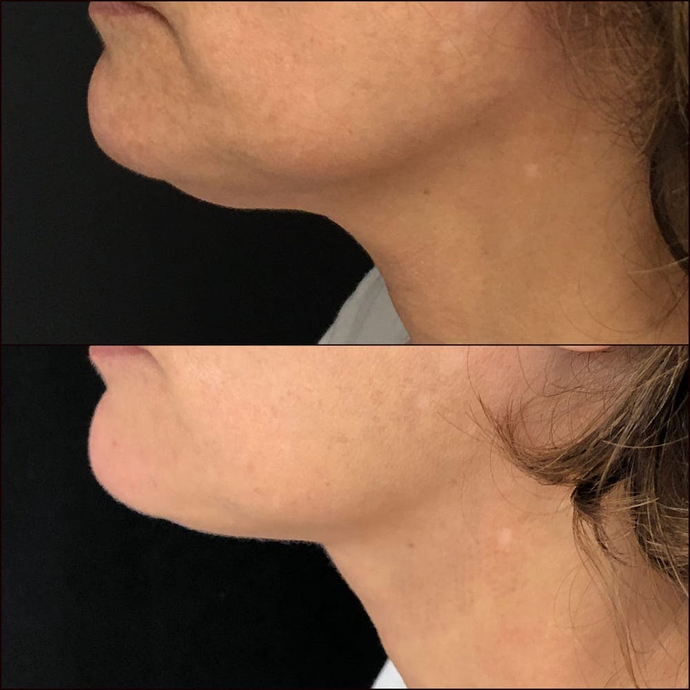 Submental Liposuction Gallery - Patient 53820296 - Image 2