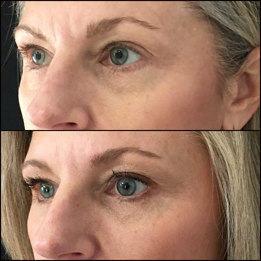 Eyelid Filler Gallery - Patient 54031162 - Image 1