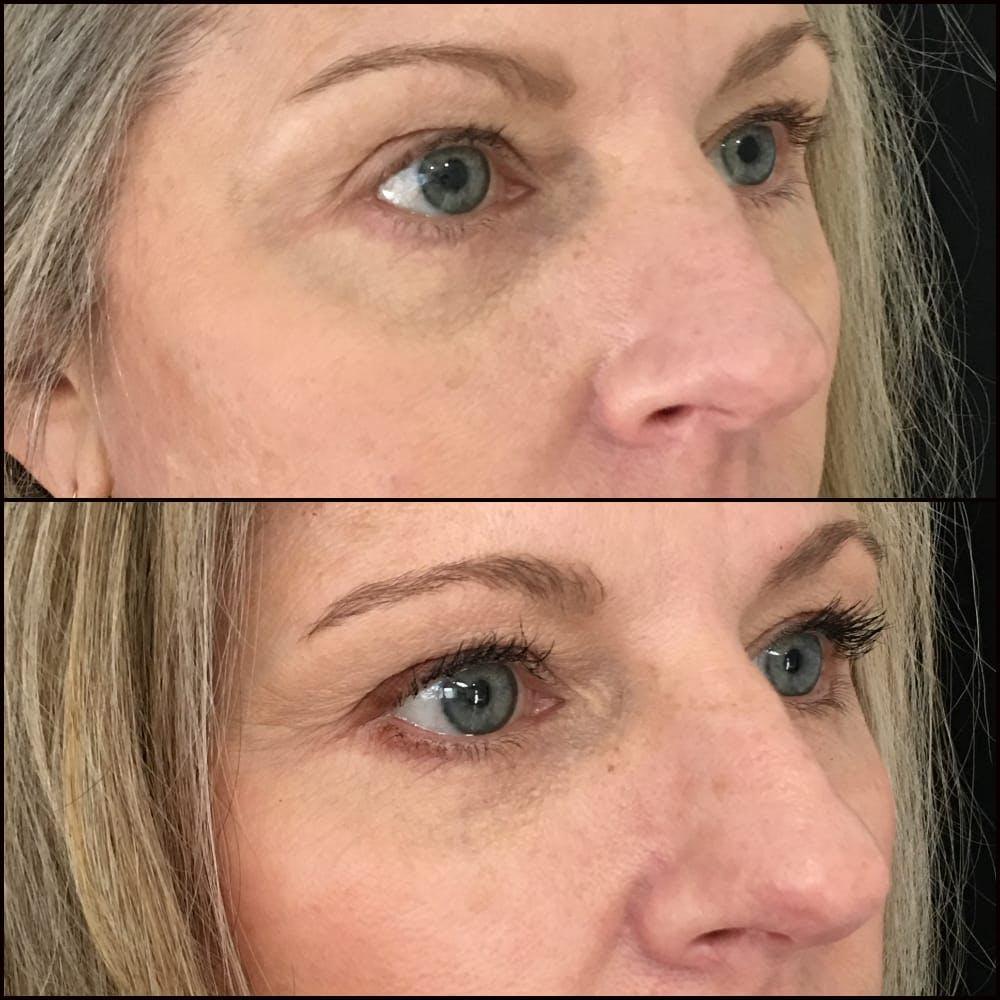 Eyelid Filler Gallery - Patient 54031162 - Image 2