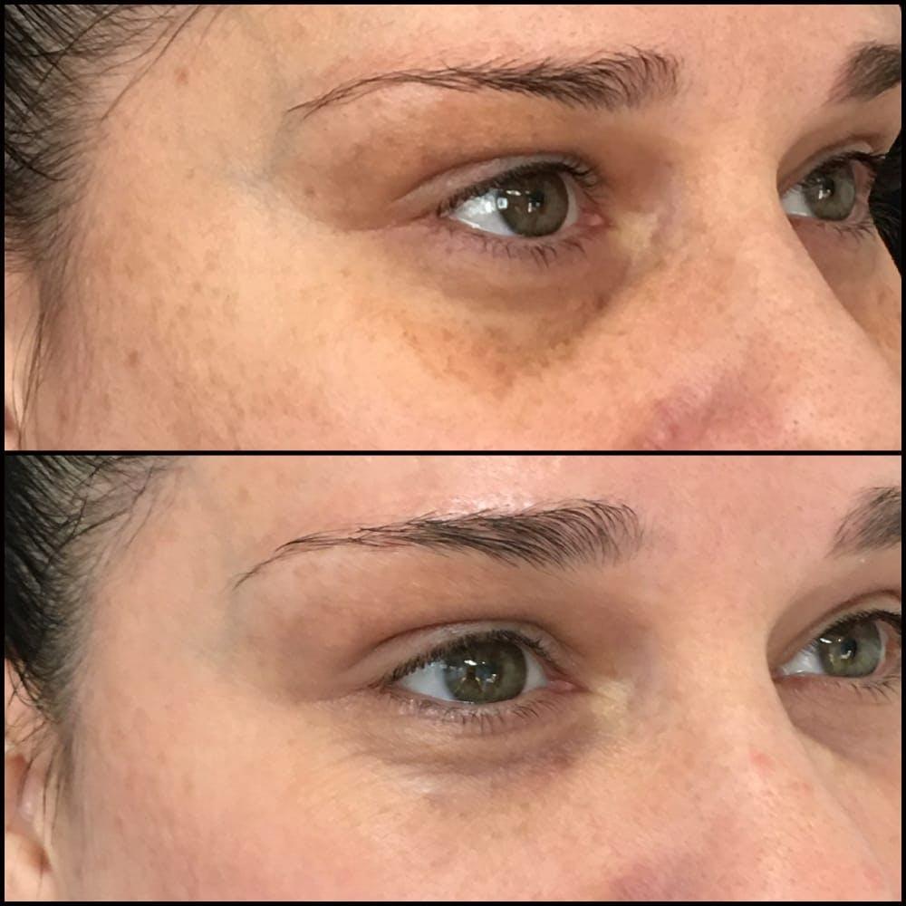 Eyelid Filler Gallery - Patient 54031164 - Image 1