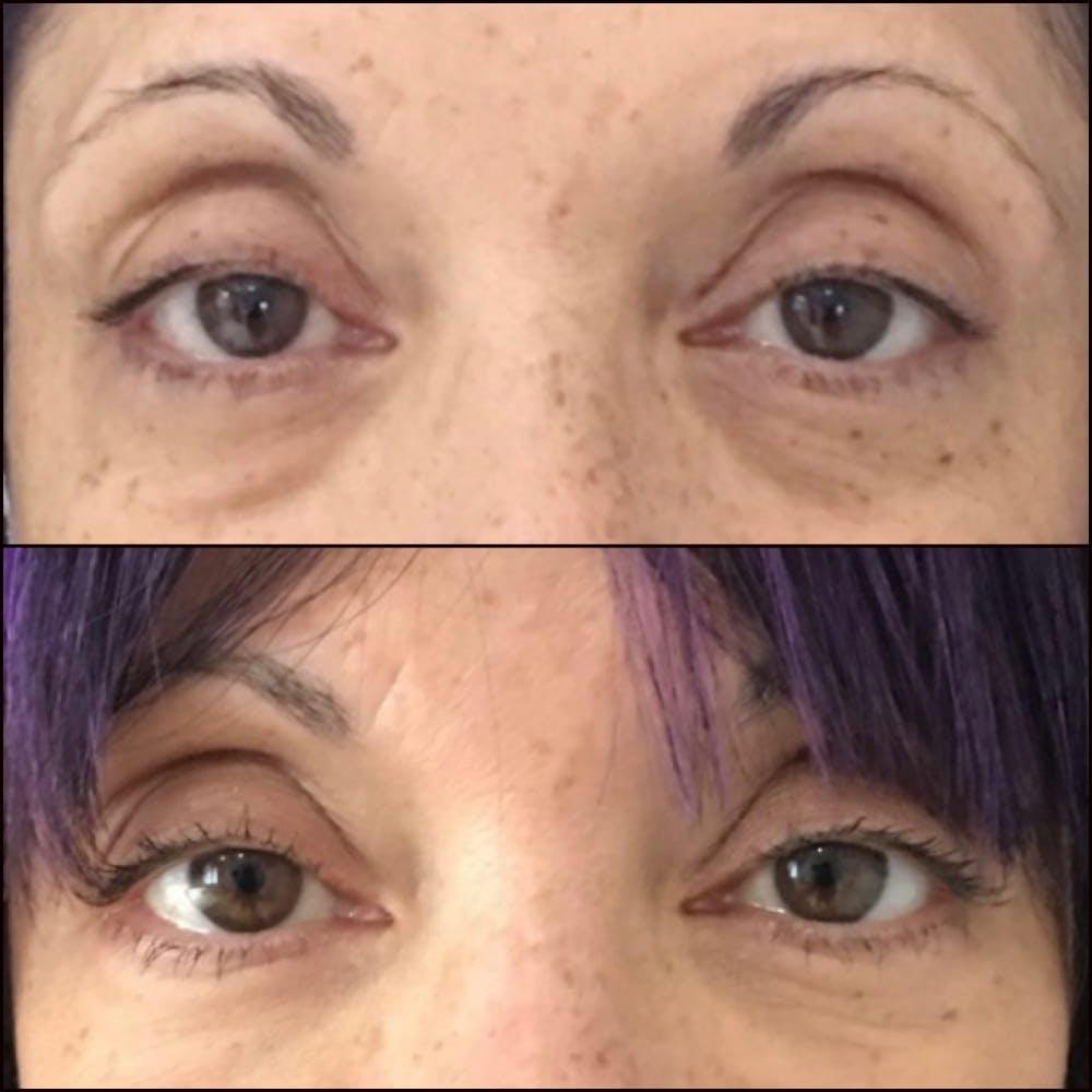 Eyelid Filler Gallery - Patient 54031165 - Image 1