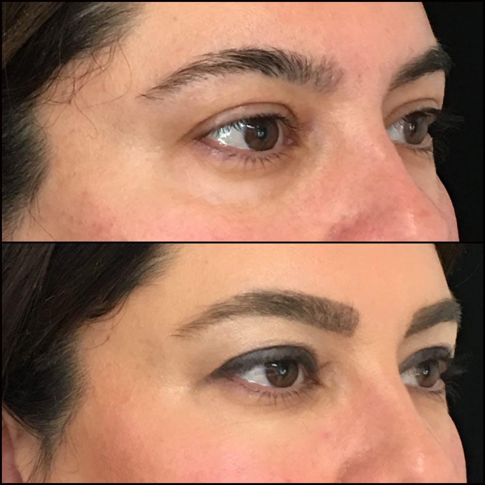 Eyelid Filler Gallery - Patient 54031163 - Image 2