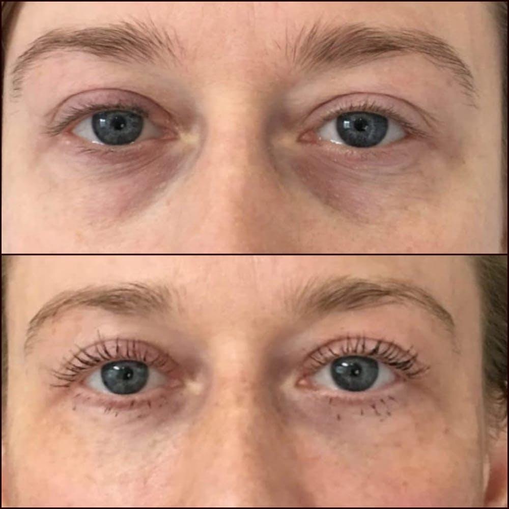 Eyelid Filler Gallery - Patient 54031166 - Image 1