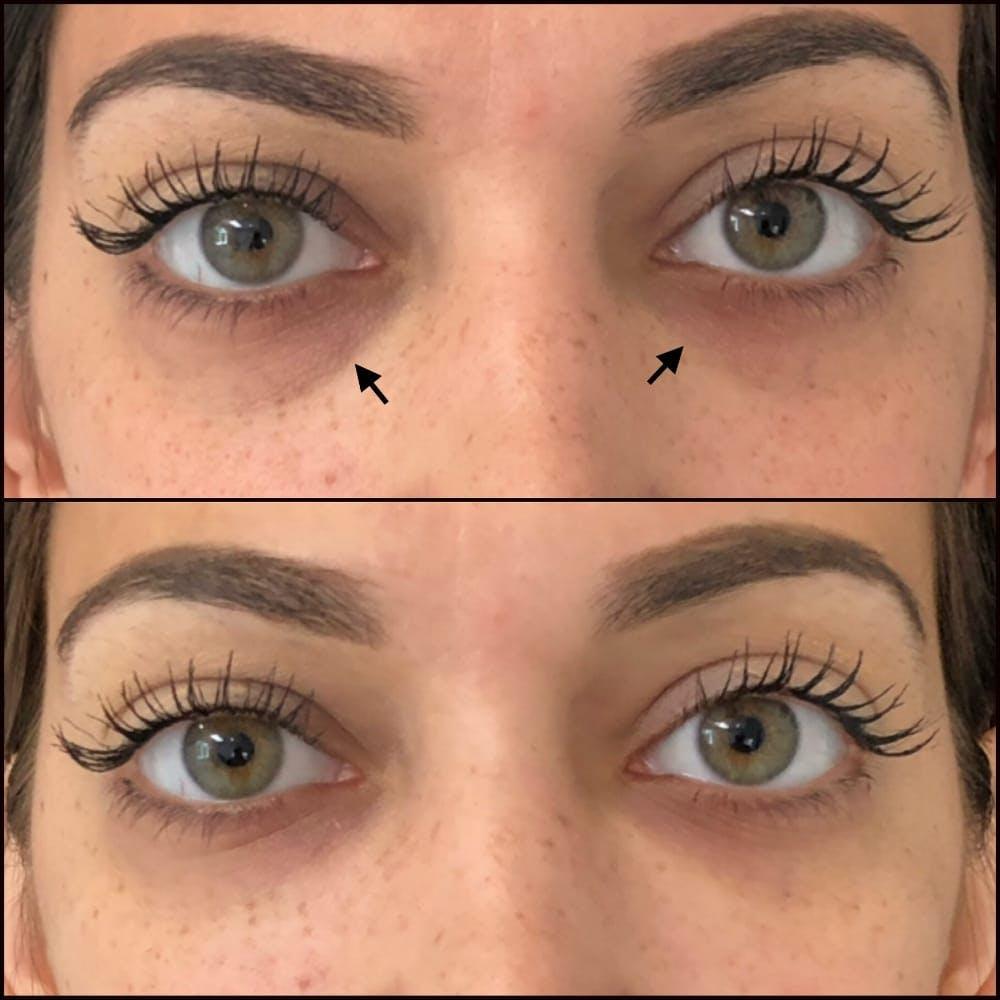 Eyelid Filler Gallery - Patient 54031167 - Image 1