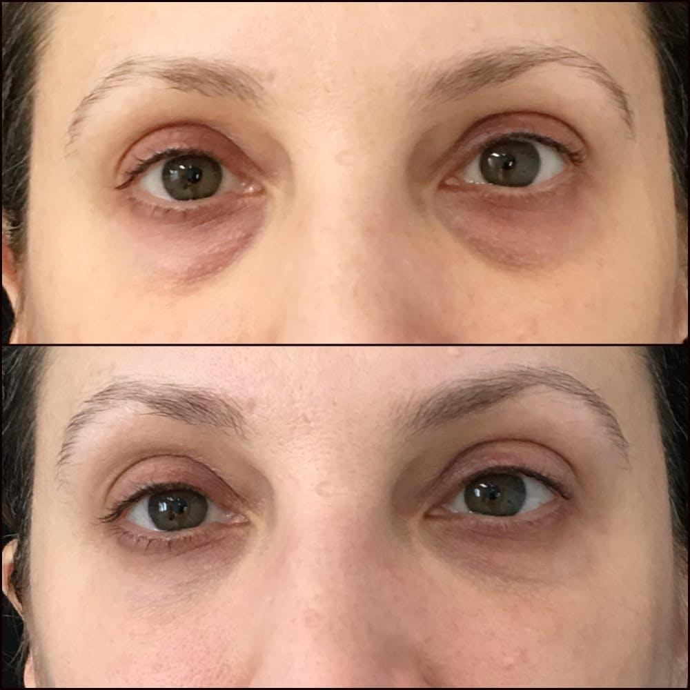 Eyelid Filler Gallery - Patient 54031169 - Image 1