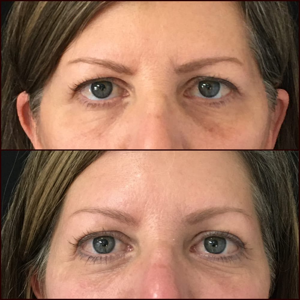 Eyelid Filler Gallery - Patient 54031170 - Image 1