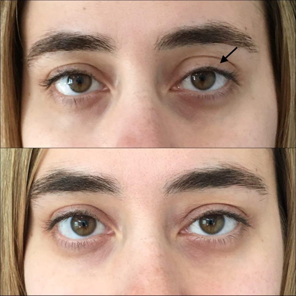 Eyelid Filler Gallery - Patient 54031171 - Image 1